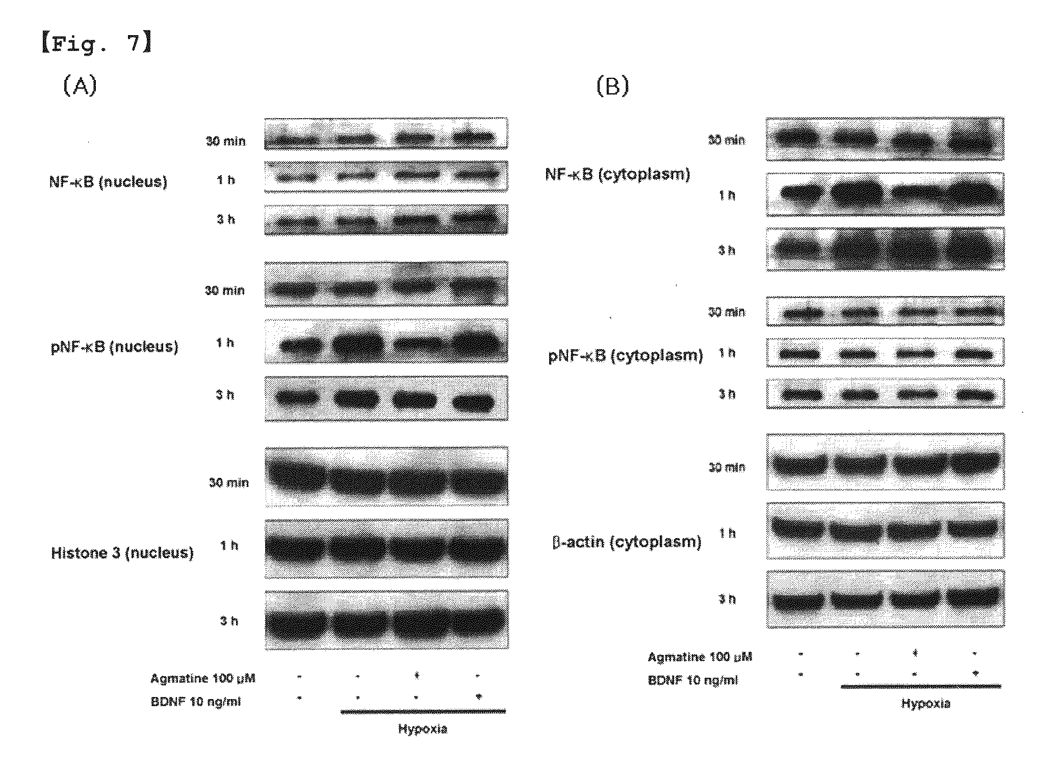 US20100130783A1 - Use of agmatine for protection of retinal