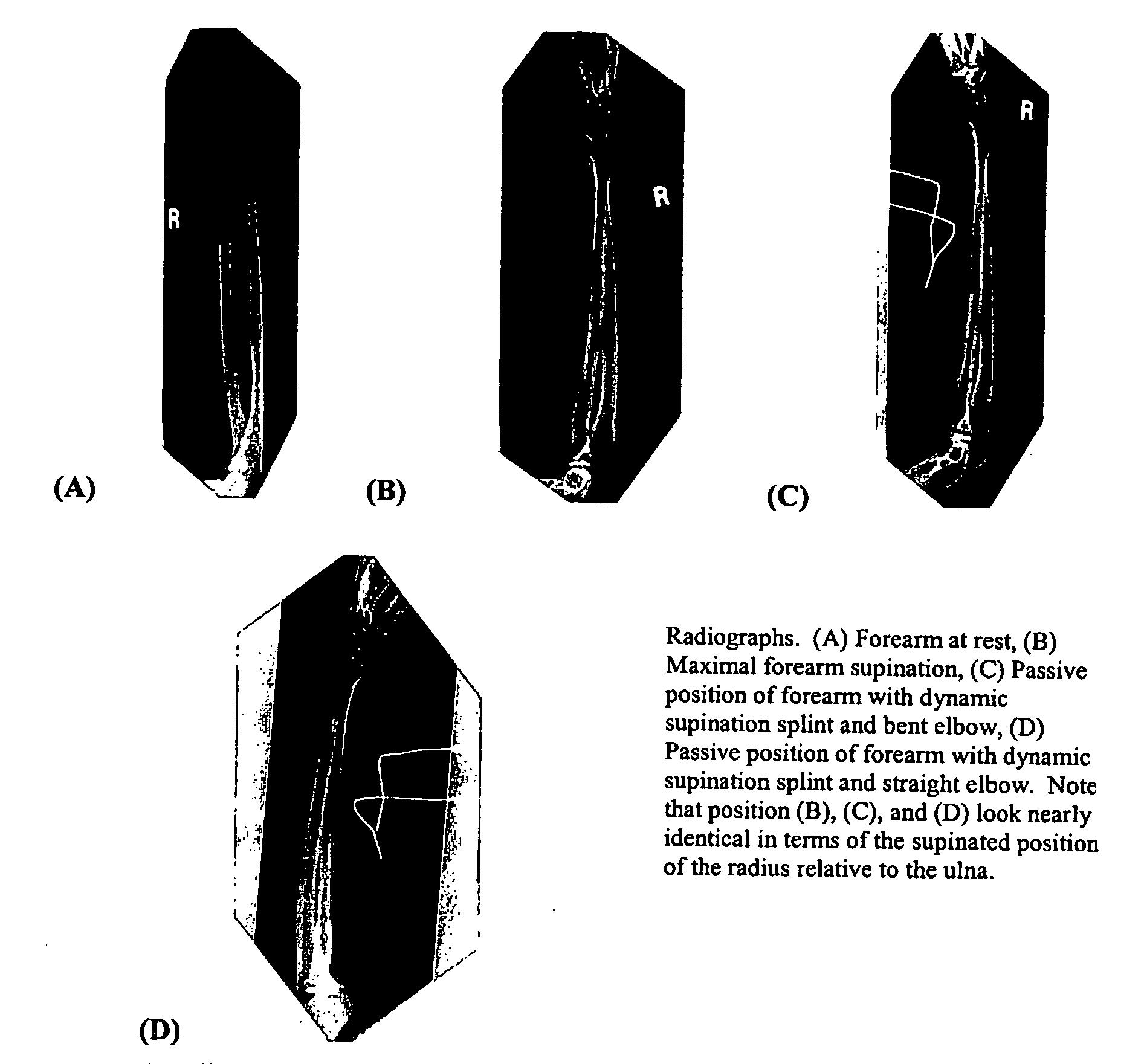 Figure US20060258965A1-20061116-P00001