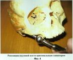 Элеватором карапетяна оао овчинниковский элеватор алтайский край