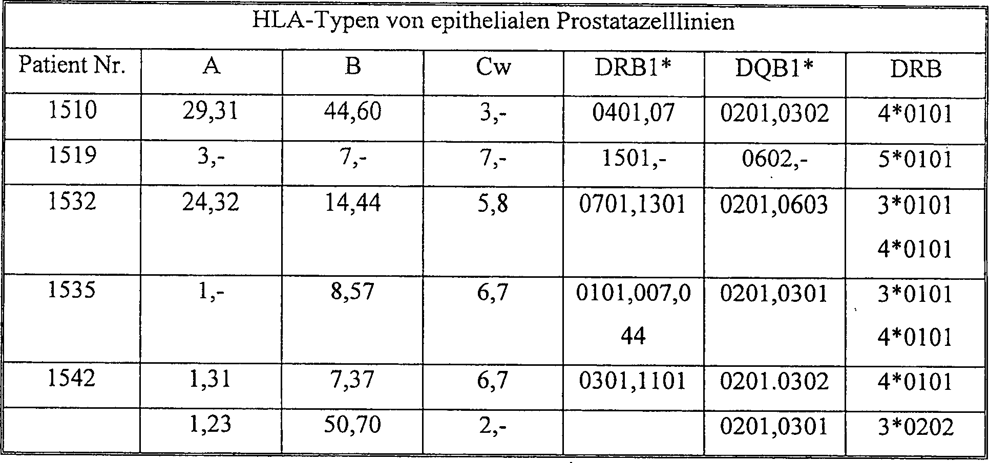 tumore prostata gleason 4+ 3