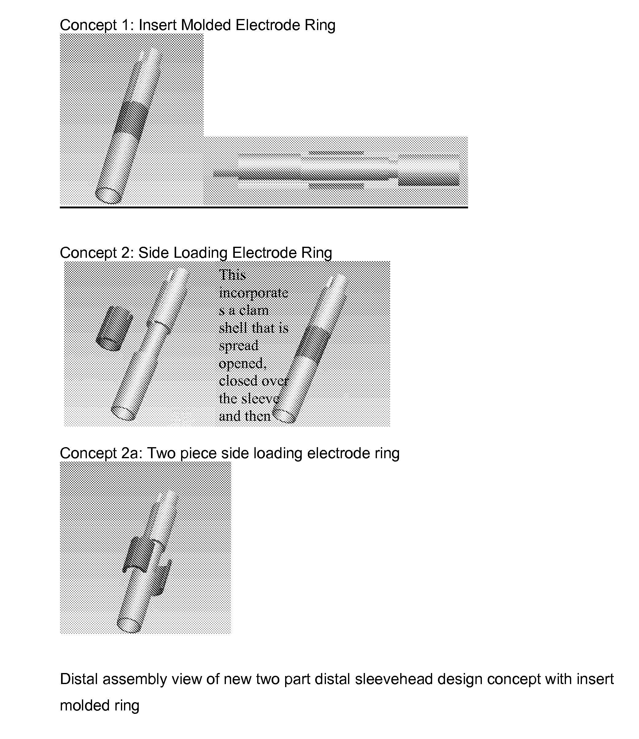 Figure US20070276458A1-20071129-P00012