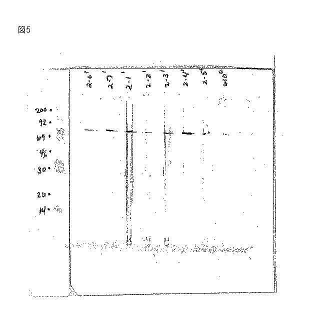 人工 透析 頻度