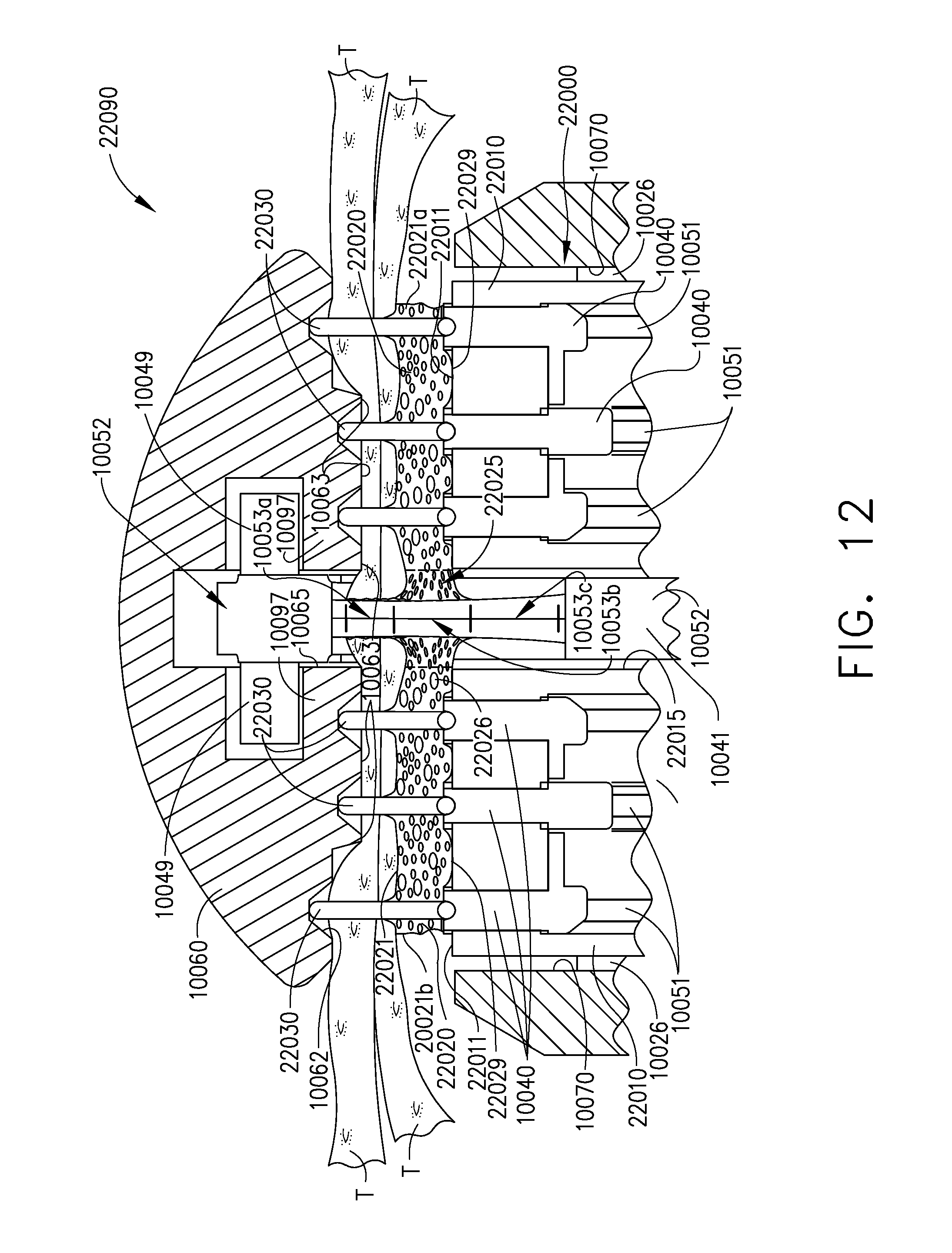 Us9775608b2 Fastening System Comprising A Firing Member Lockout Circuit Diagram Additionally Stun Gun Schematics Circuits Besides Google Patents
