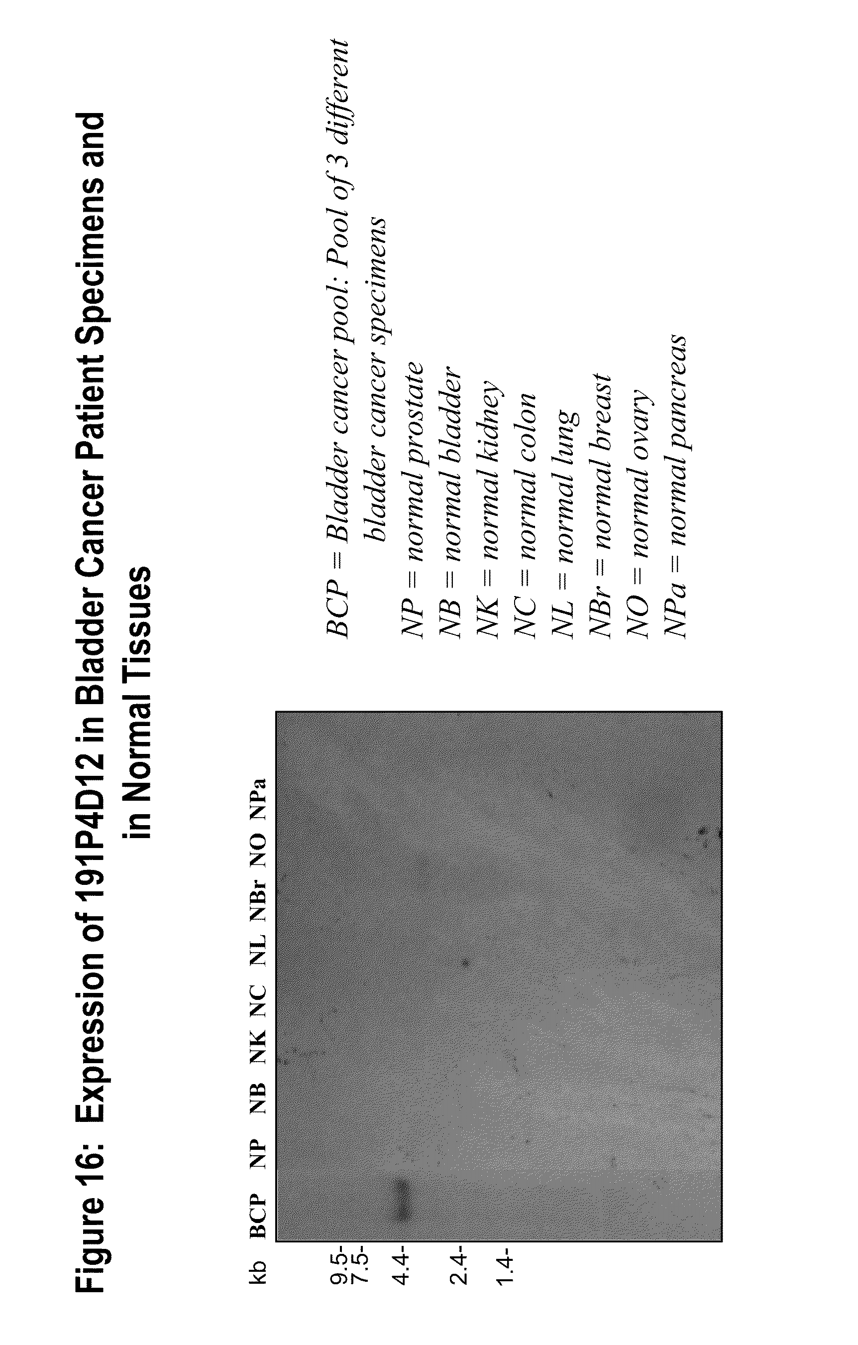 d20c64f07 US20100297669A1 - NUCLEIC ACIDS AND CORRESPONDING PROTEINS ENTITLED  191P4D12(b) USEFUL IN TREATMENT AND DETECTION OF CANCER - Google Patents