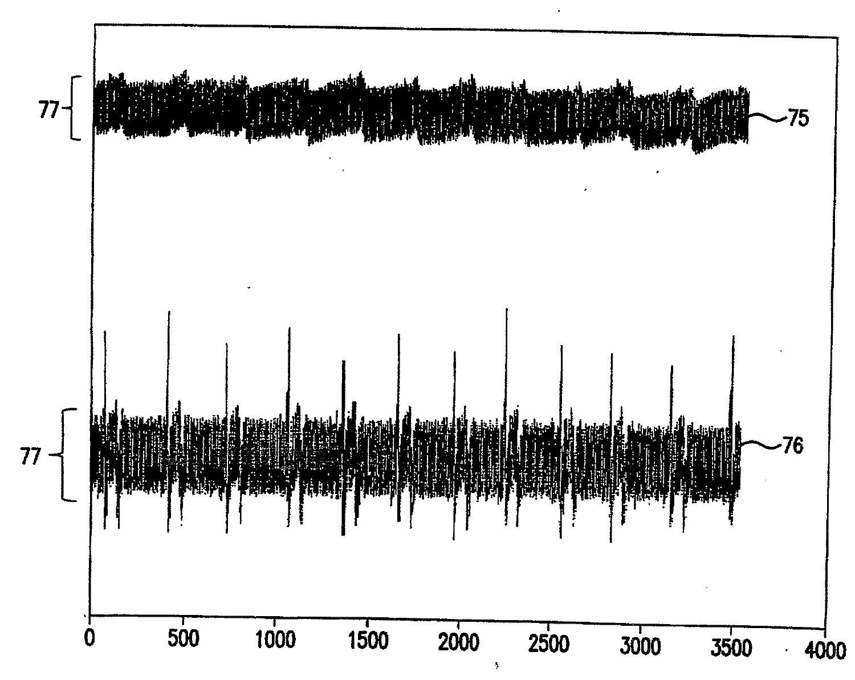 Figure R1020067007066