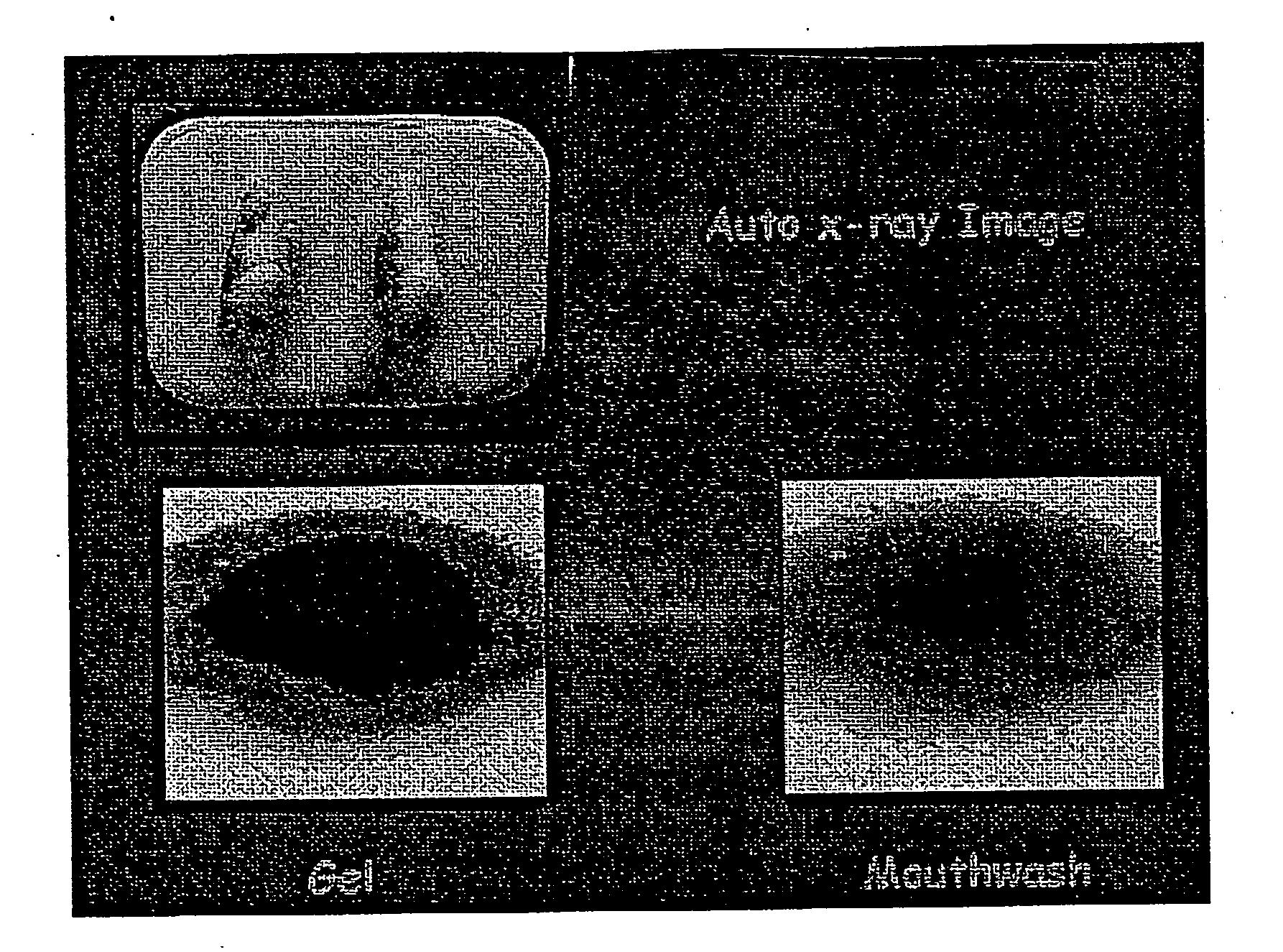 Figure US20060160045A1-20060720-P00004