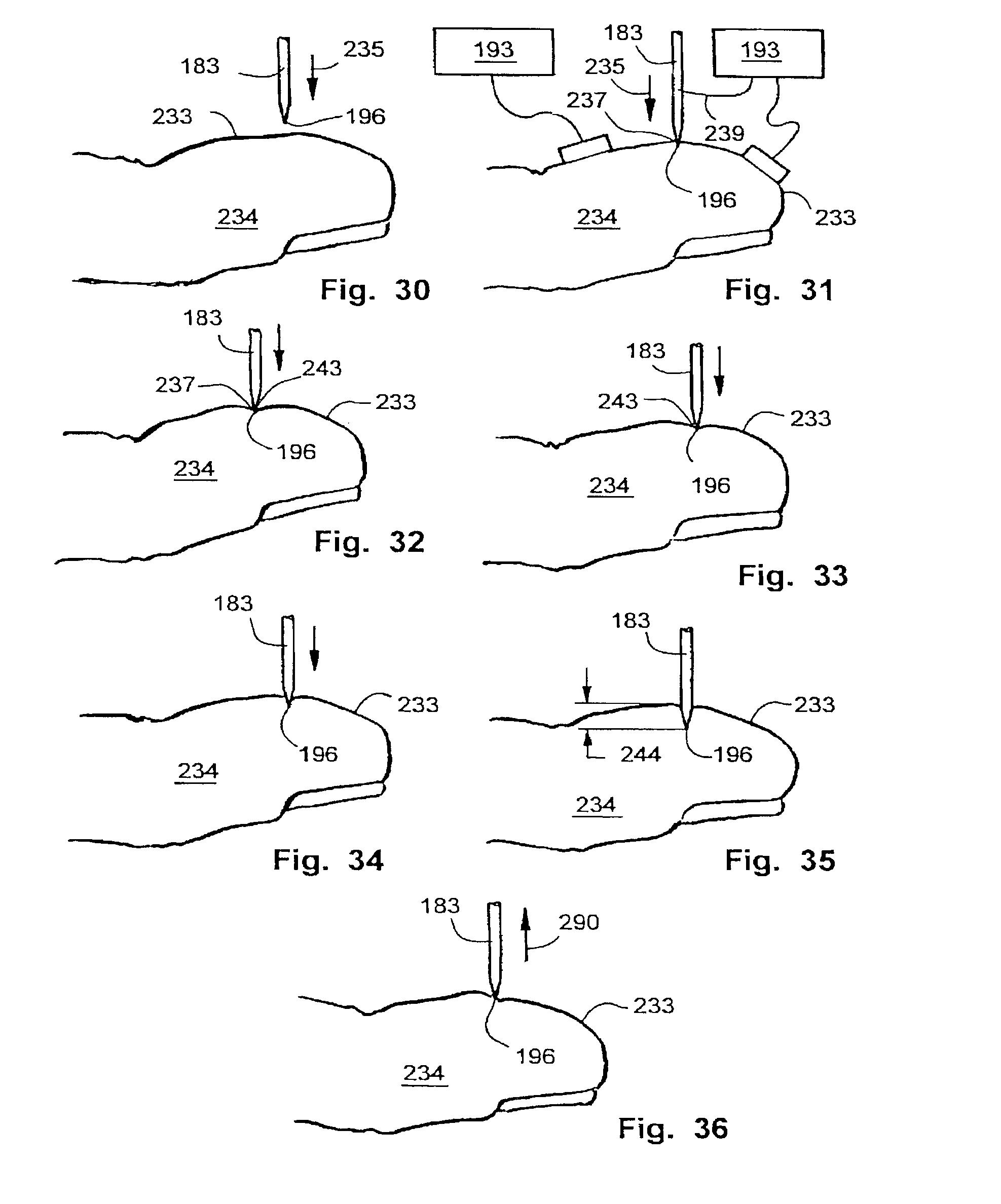 US B2 Tissue penetration device Google Patents