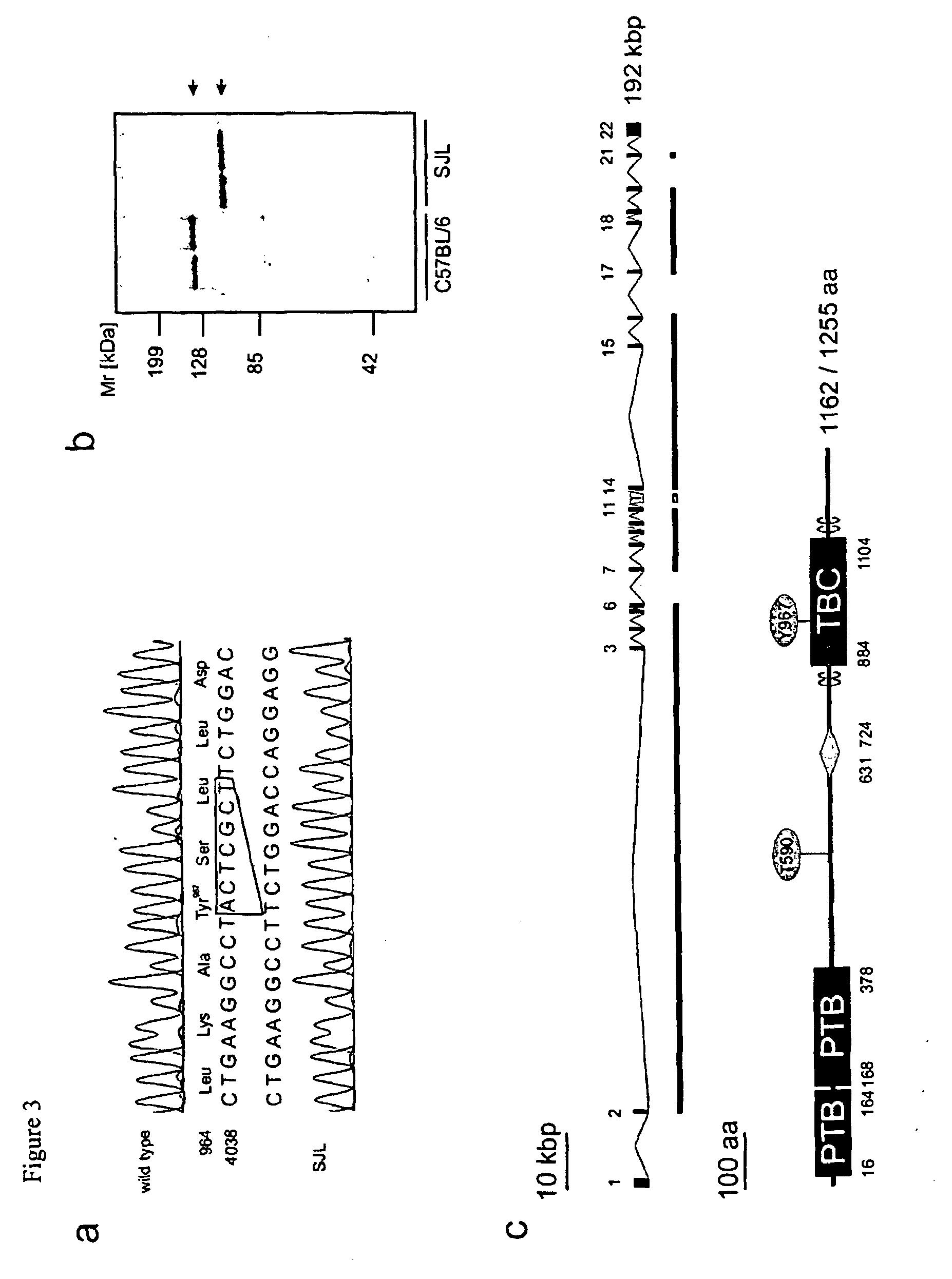tbc1d1 diabetes mellitus