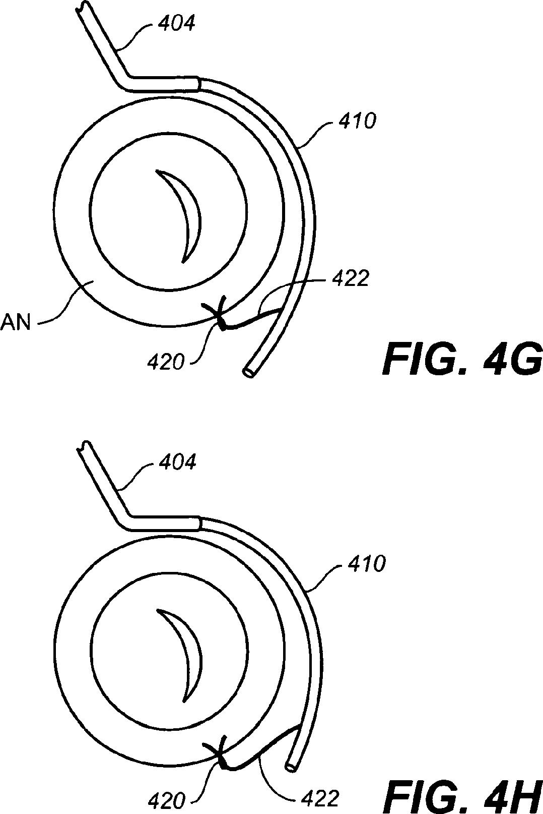 Figure AU2016266039B2_D0001