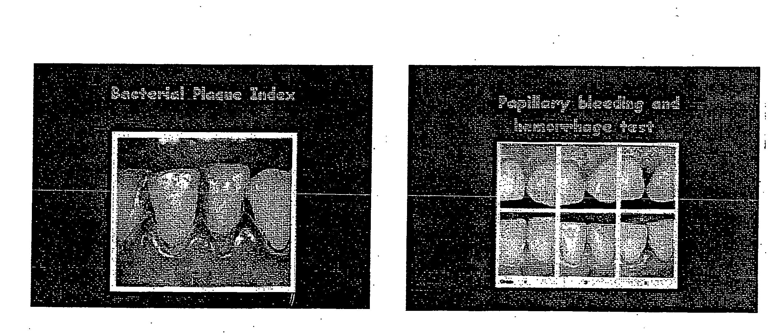 Figure US20060160045A1-20060720-P00001