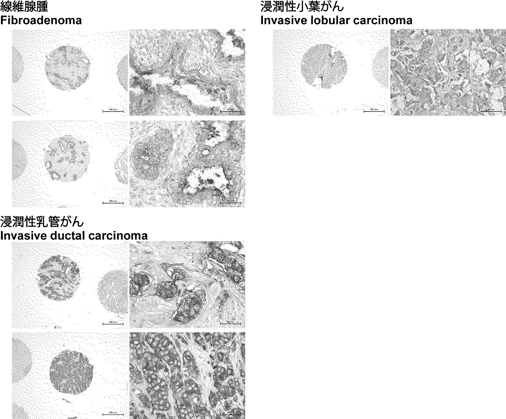 腺腫 乳腺 線維