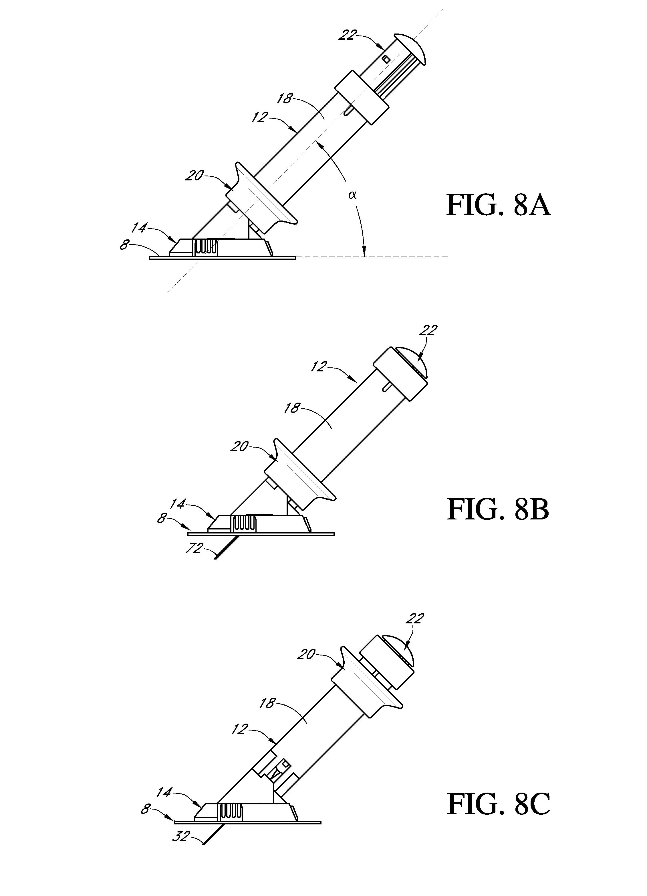 Ford 8n Hydraulic Pump Diagram Car Tuning