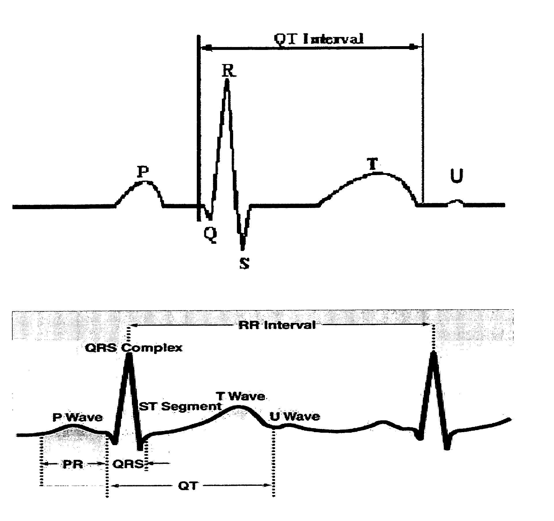 EP1543770A1 - A system and a method for analysing an ECG signal