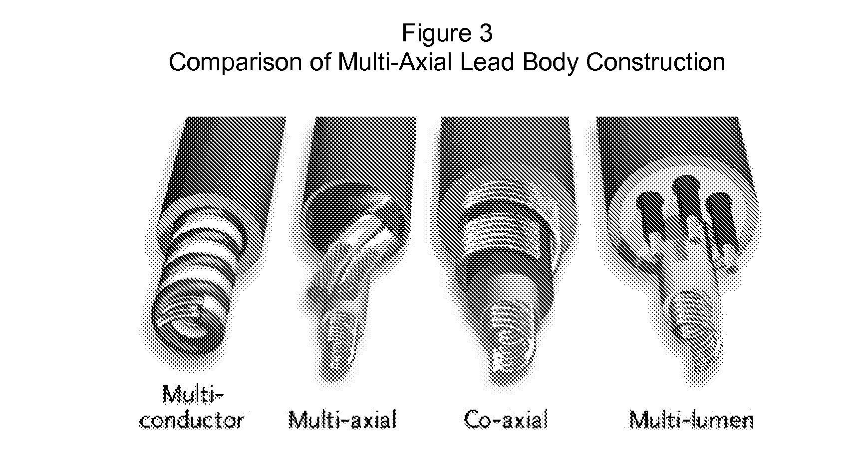 Figure US20070276458A1-20071129-P00003