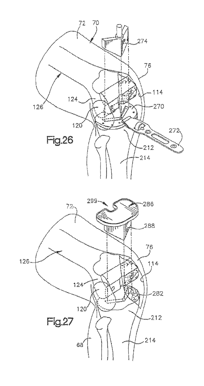 US8641726B2 - Method for robotic arthroplasty using