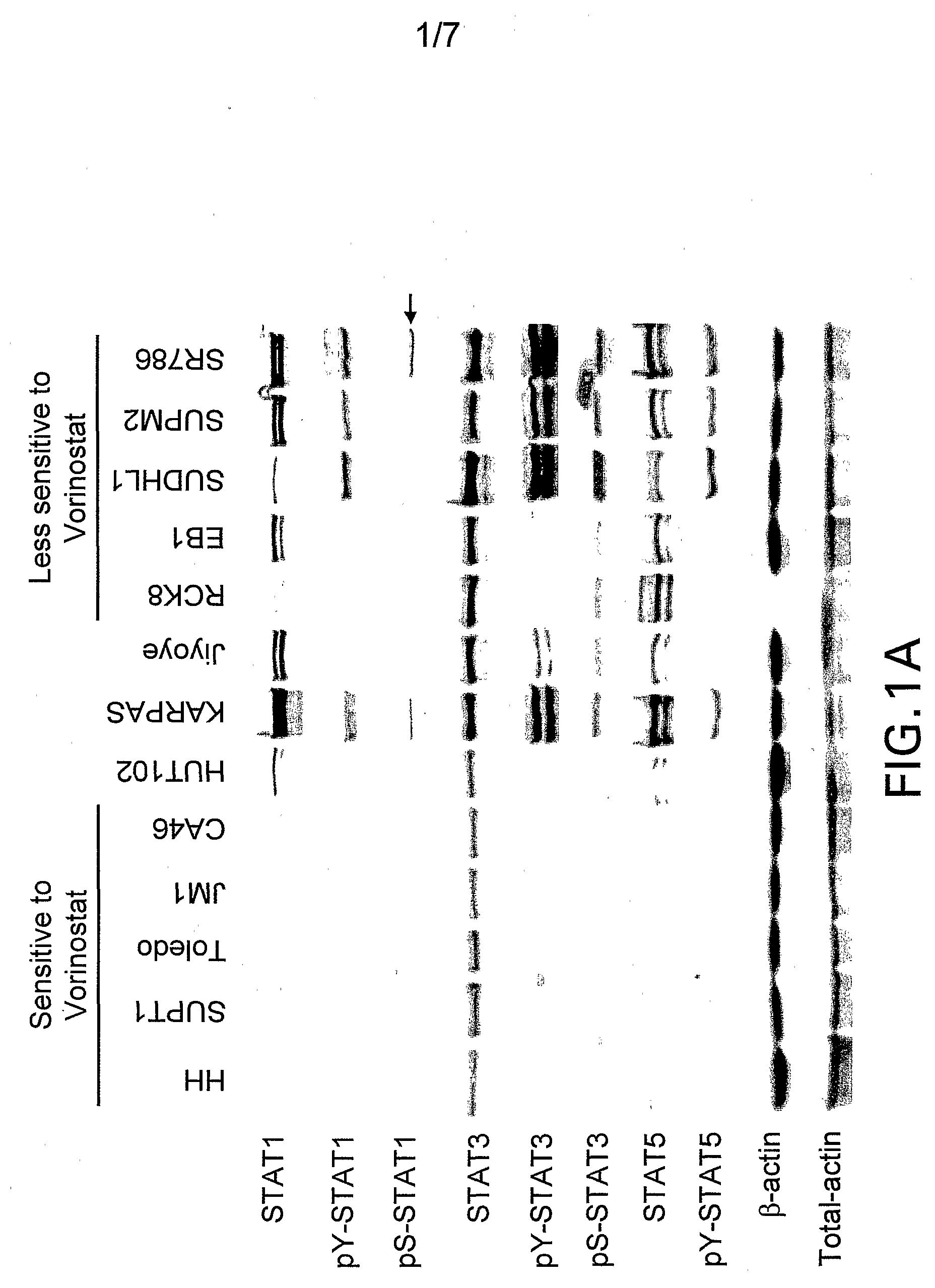WO2007067476A2 - Methods for predicting treatment response