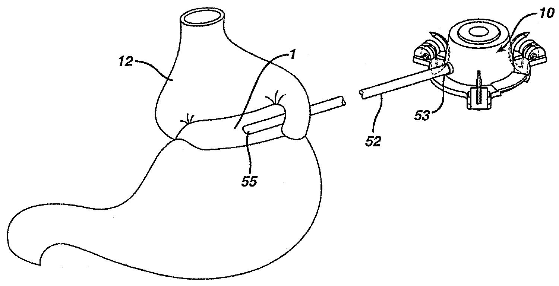 Figure R1020050045990