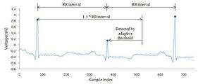 KR20130085632A - R-peak detection method of ecg signal using