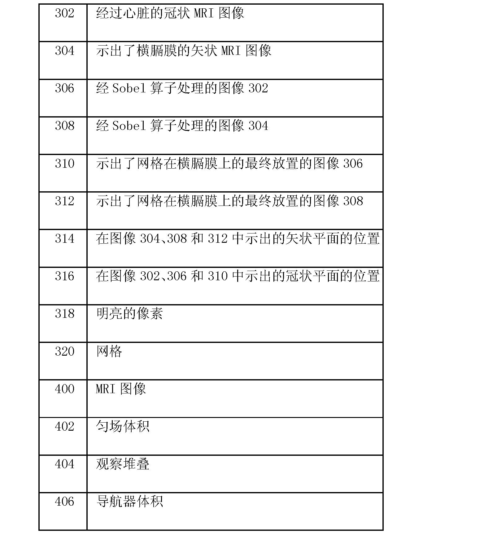 Figure CN102203630BD00131