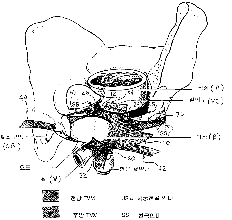 Figure R1020047013616