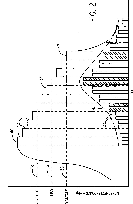 patent de102010061231a1 adaptive pumpensteuerung w hrend. Black Bedroom Furniture Sets. Home Design Ideas