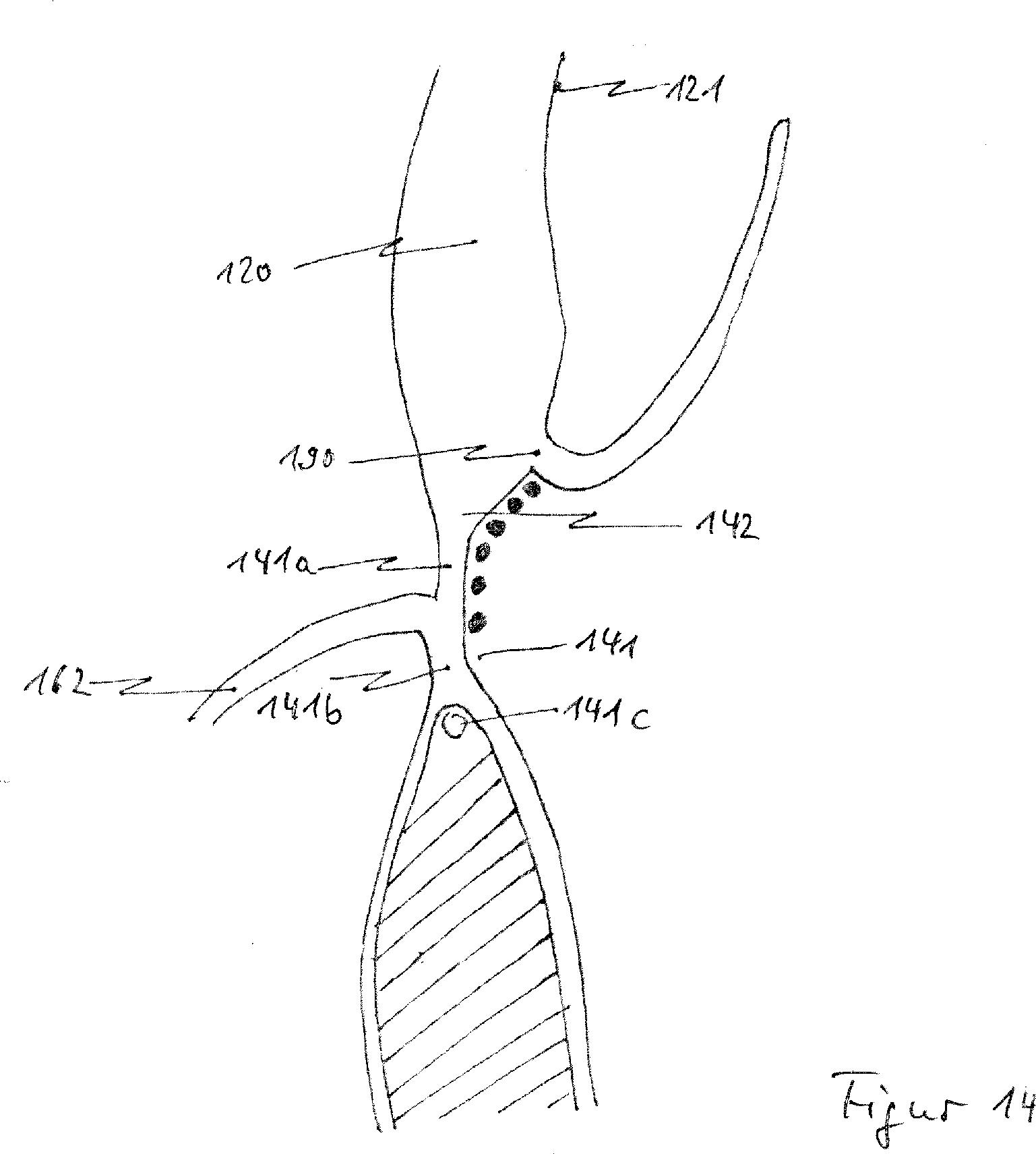 Patent DE102013208038A1 - Katheterbasierendes ...