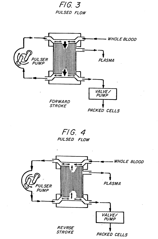 Patent EP0112173A2 - Plasmapheresis process - Google Patents