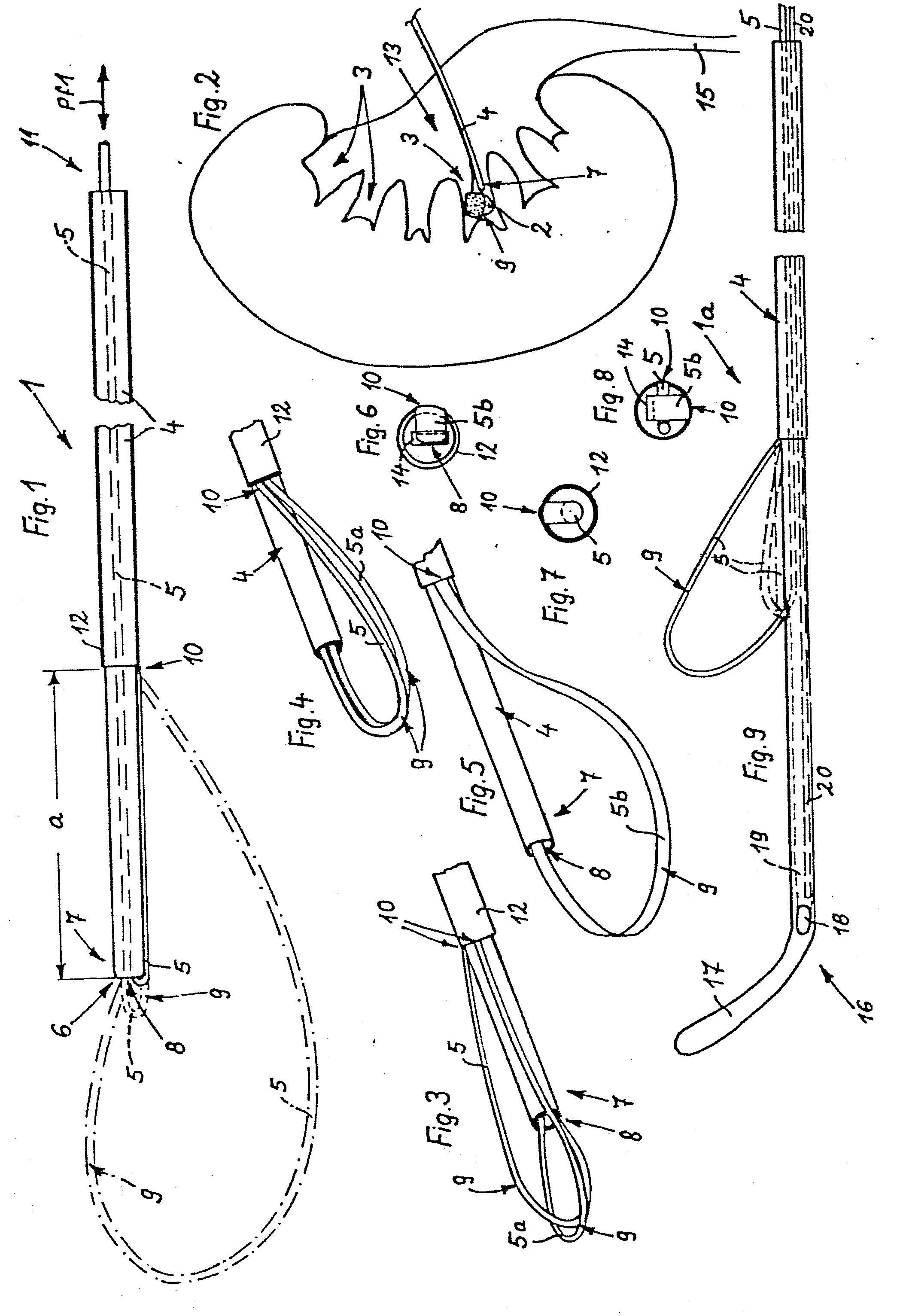 patent ep0123175a1 katheter zum entfernen von steinen. Black Bedroom Furniture Sets. Home Design Ideas