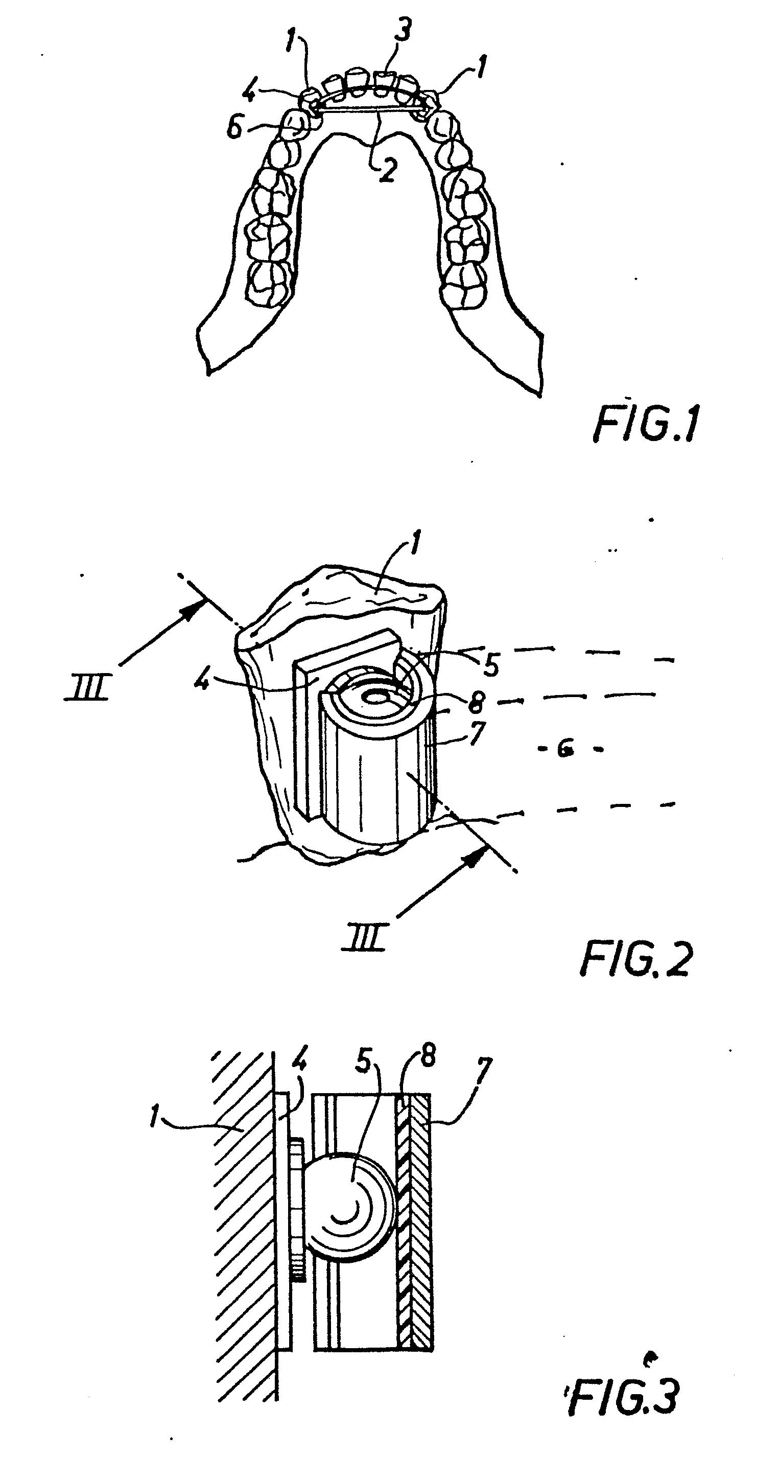 Patent EP0184472A1 - Dispositif de pose de prothèse dentaire adjointe ...
