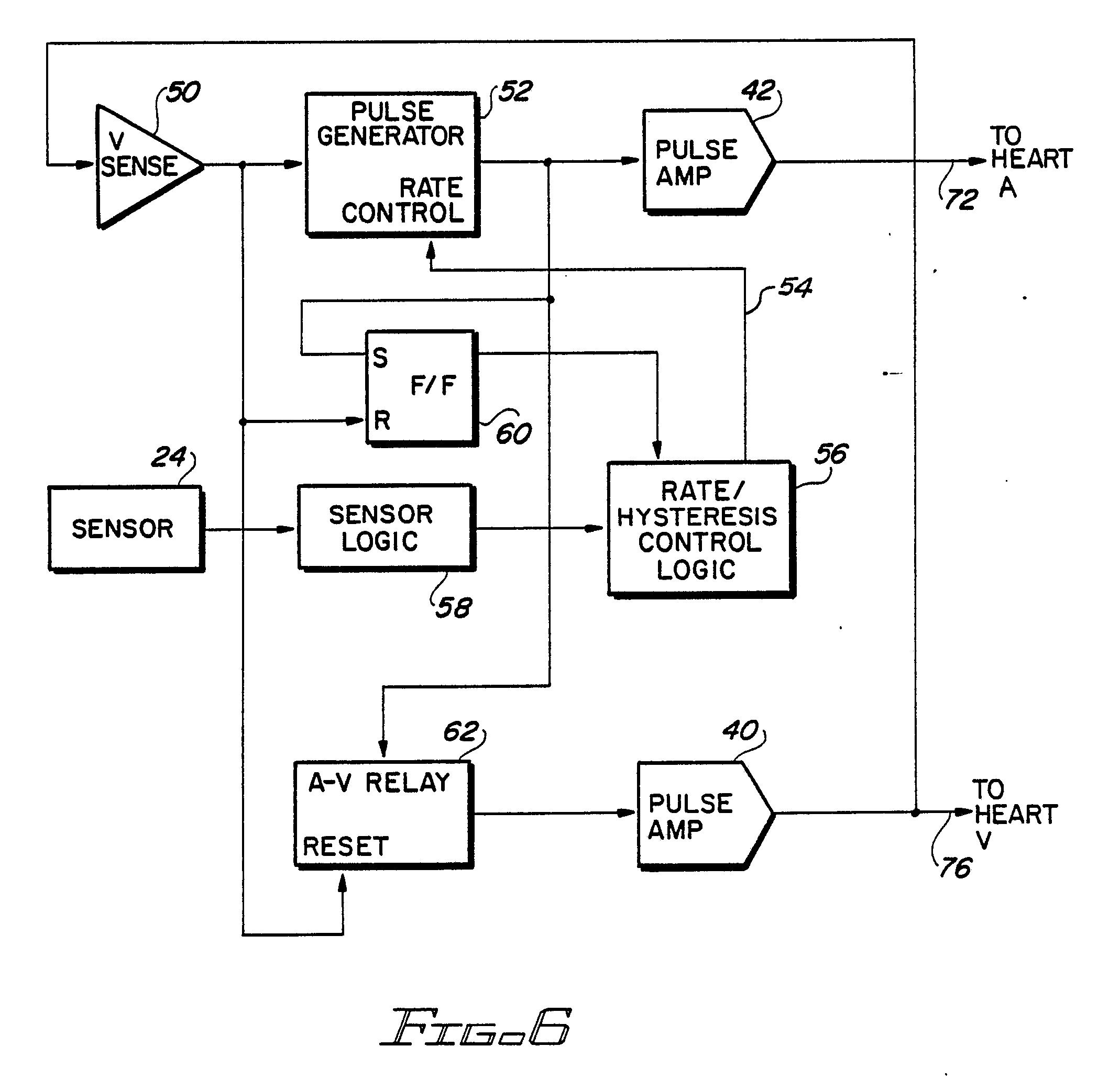 imgf0005 pacemaker block diagram blueraritan info