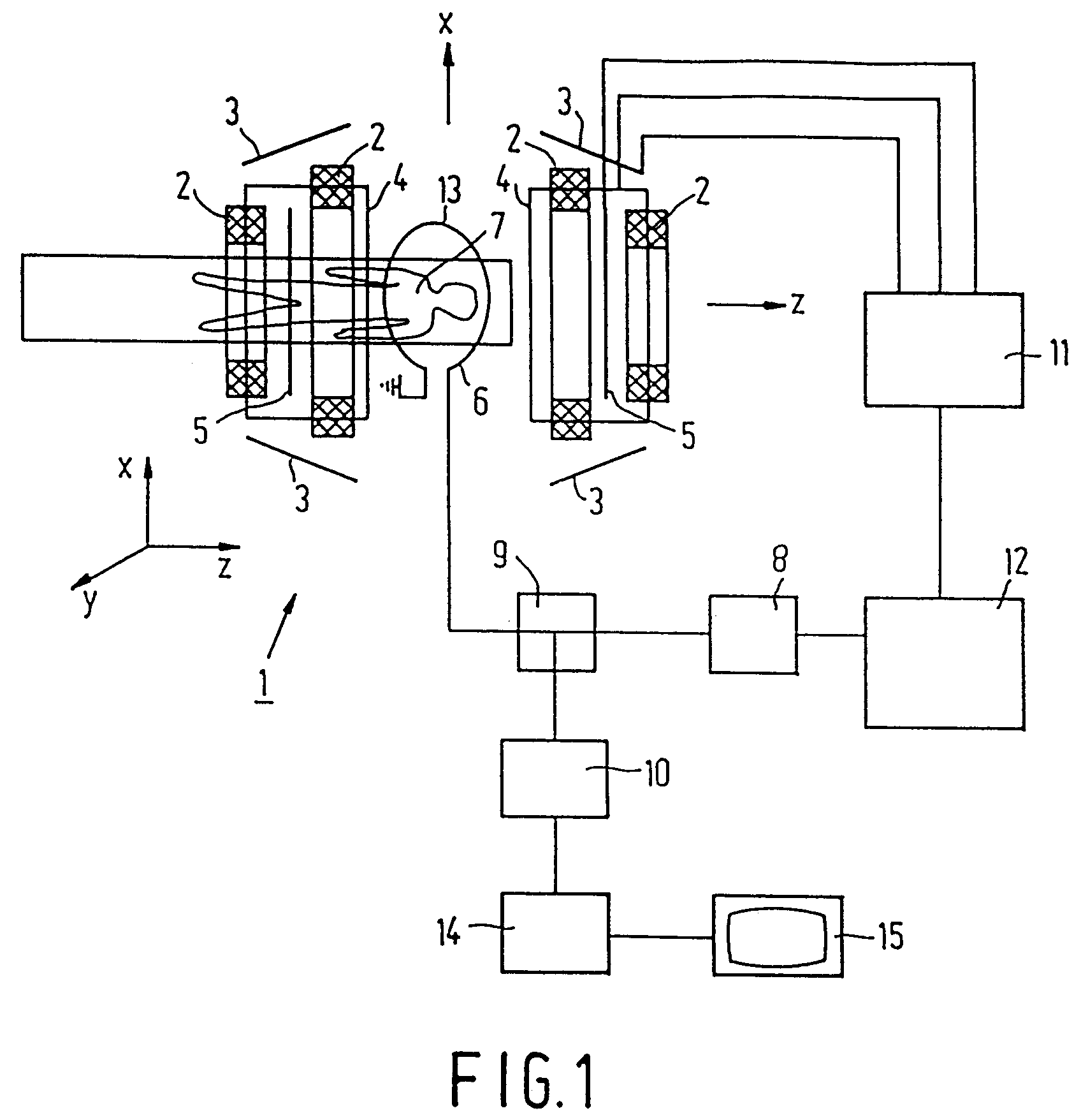 imgf0001 patent ep0644437a1 correction of read gradient polarity in epi  at bayanpartner.co