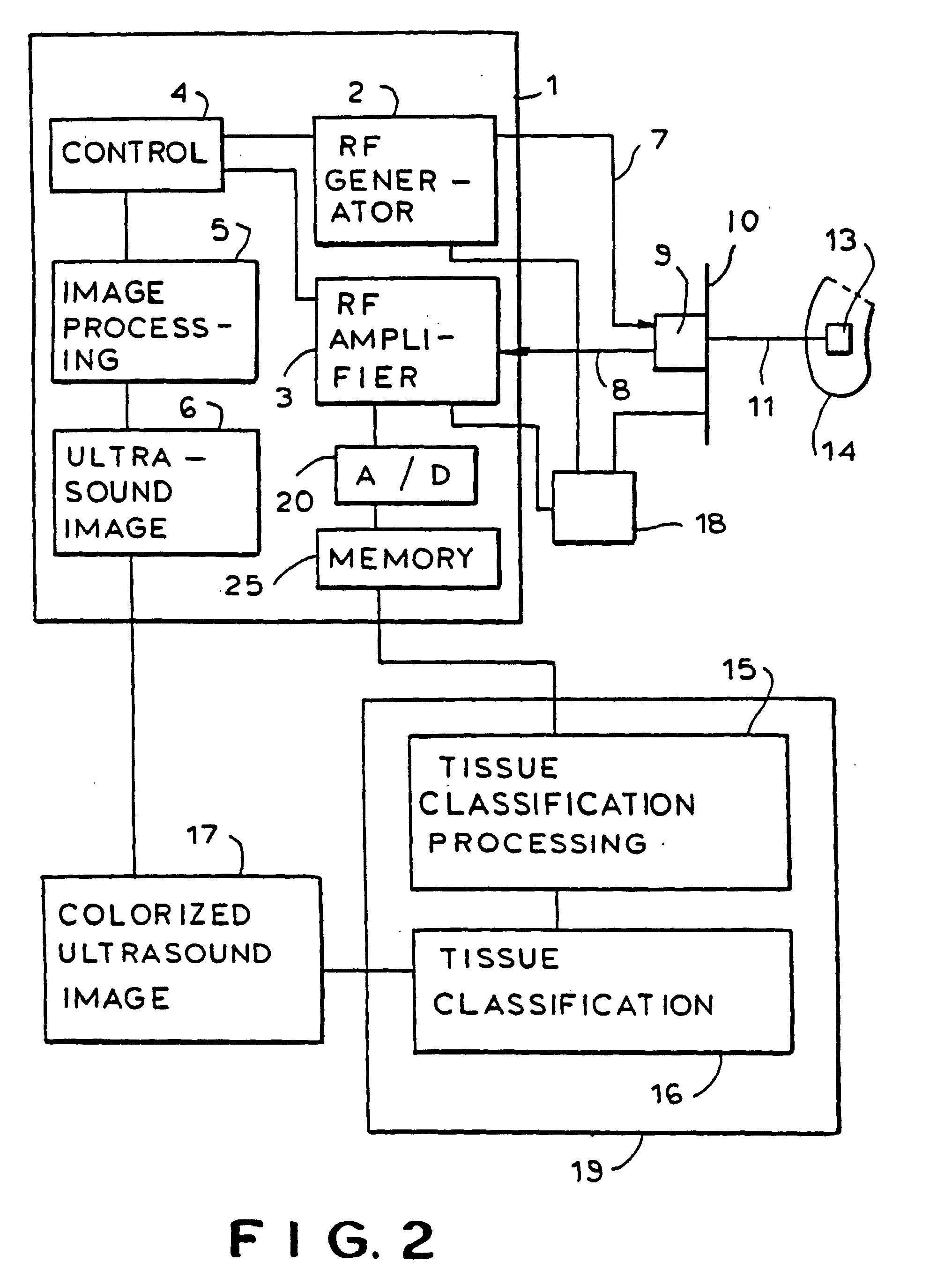 patent ep0760625b1 ger t zur gewebecharakterisierung. Black Bedroom Furniture Sets. Home Design Ideas