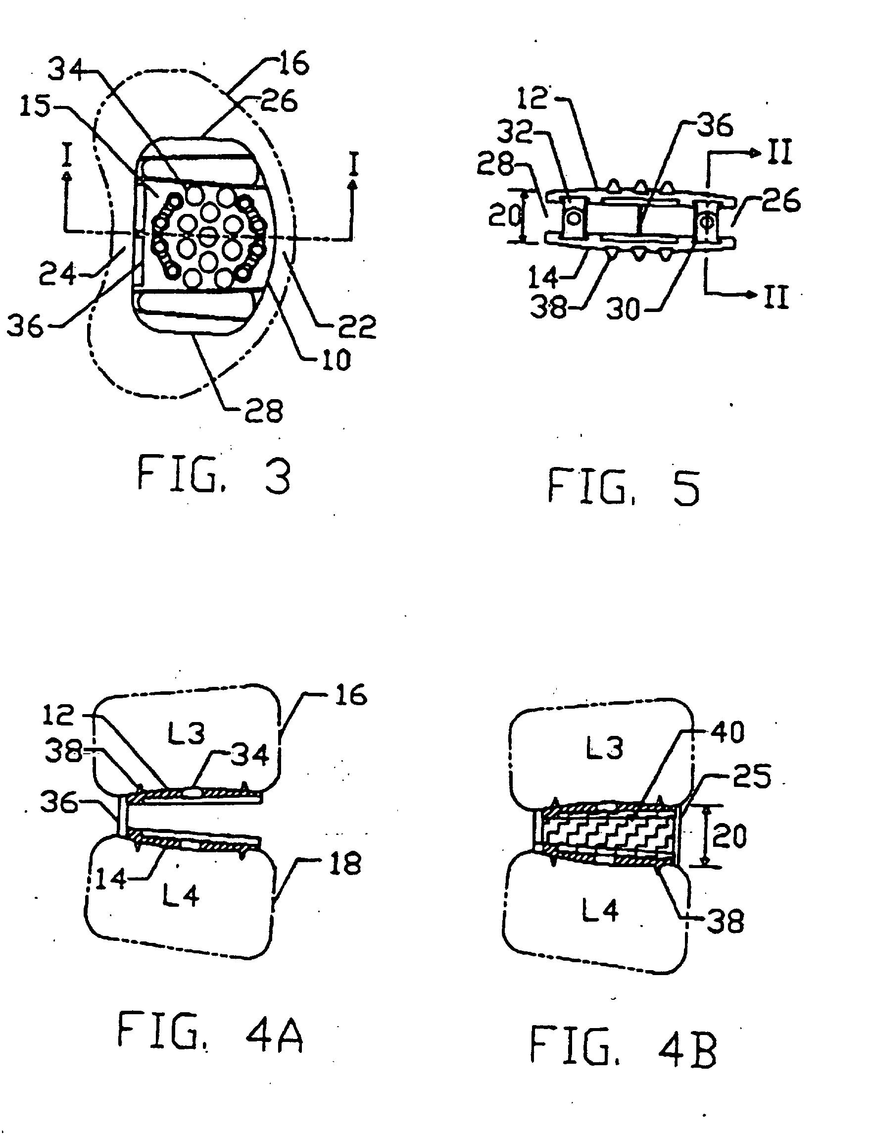 patent ep0977526b1 fusionsvorrichtung mit multivariabler h he google patentsuche. Black Bedroom Furniture Sets. Home Design Ideas