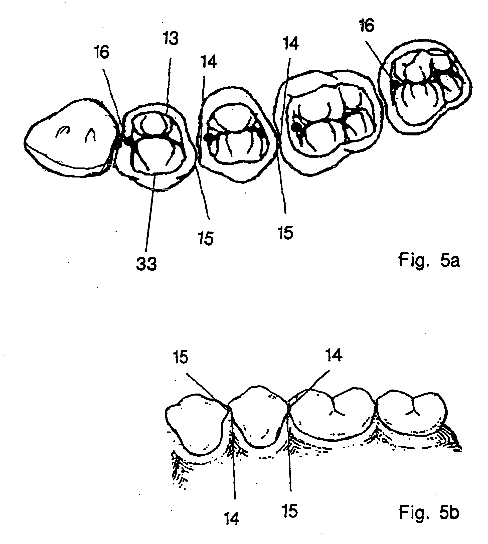 patent ep1022998b1 zahnsatz google patentsuche. Black Bedroom Furniture Sets. Home Design Ideas