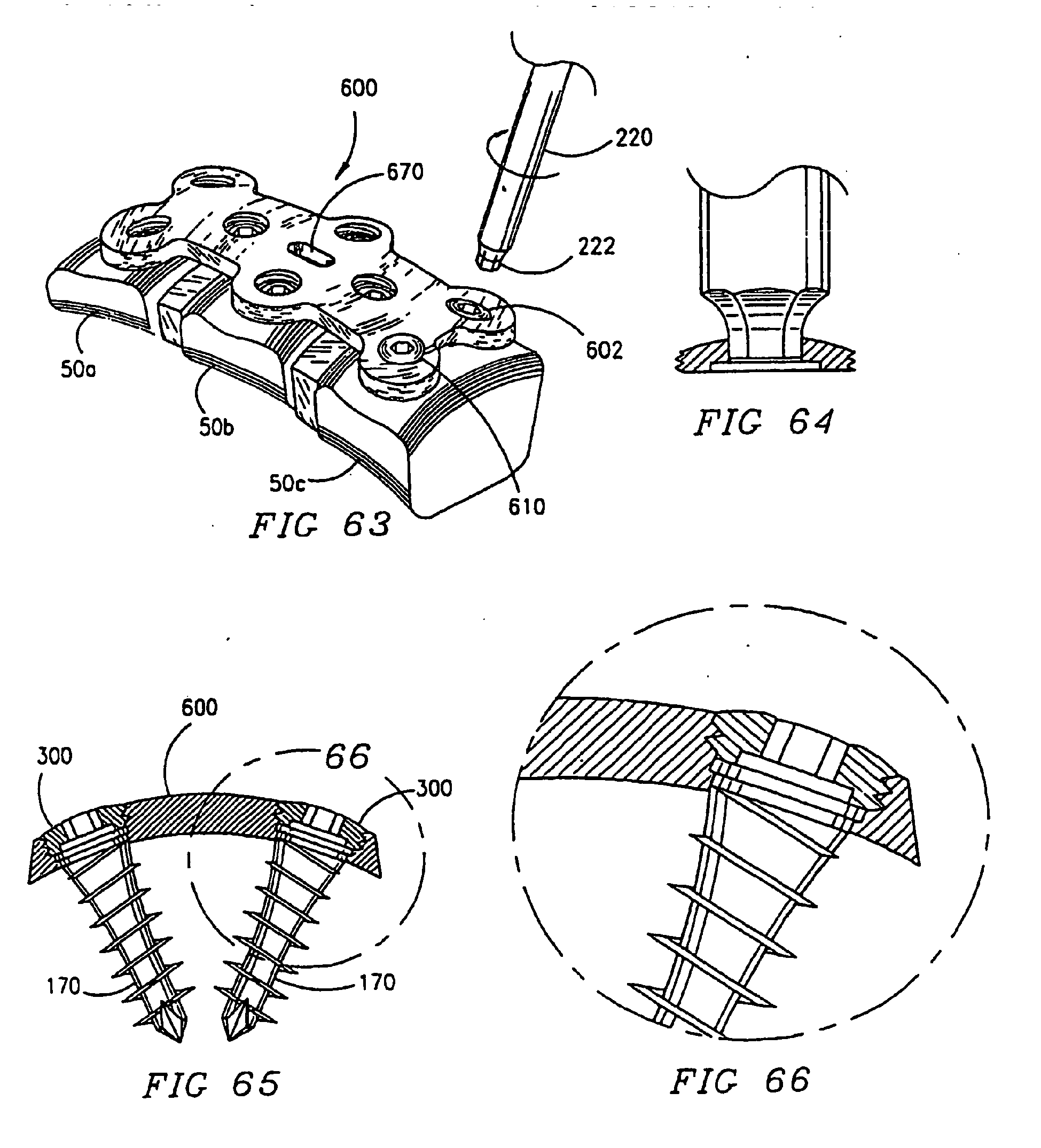 patent ep1393687b1 single lock anterior cervical plate 110 Punch Down Block Wiring patent drawing