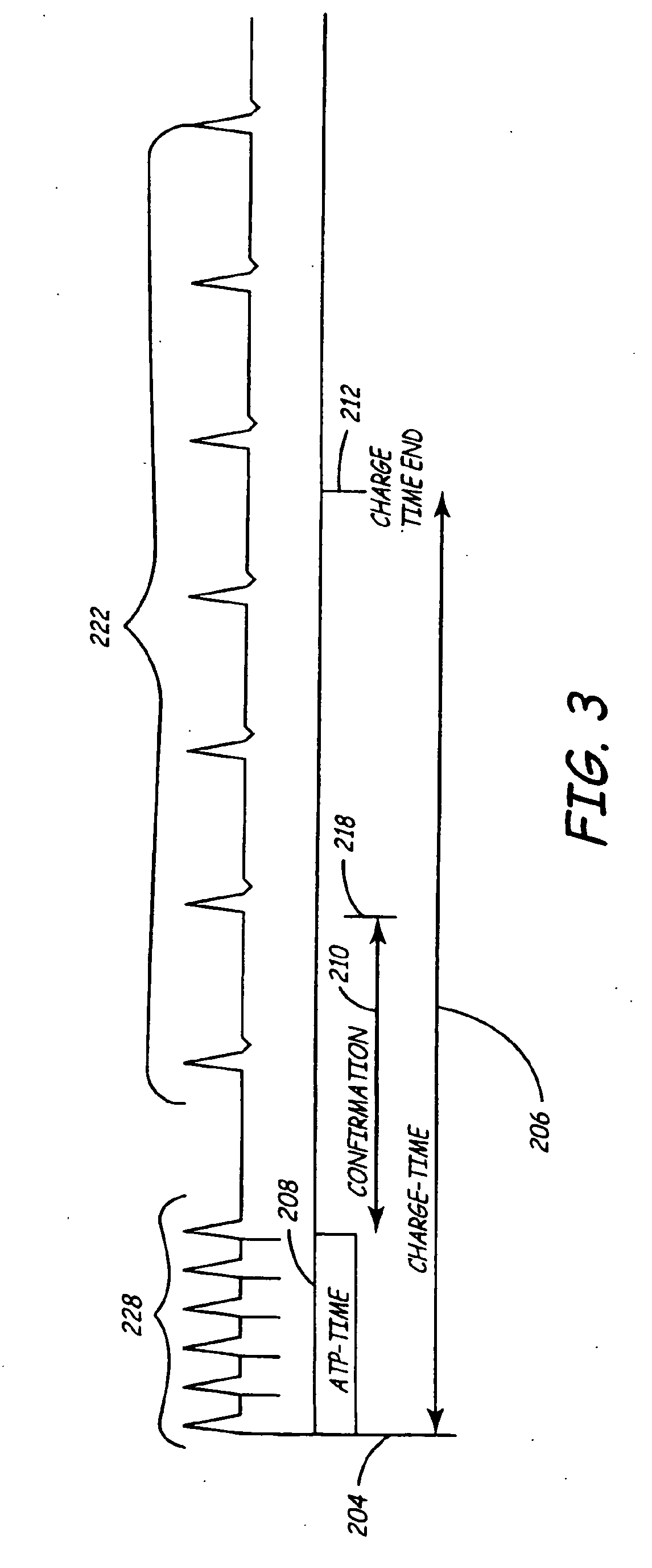 patent ep1501600b1 kombinierte antitachykardie. Black Bedroom Furniture Sets. Home Design Ideas