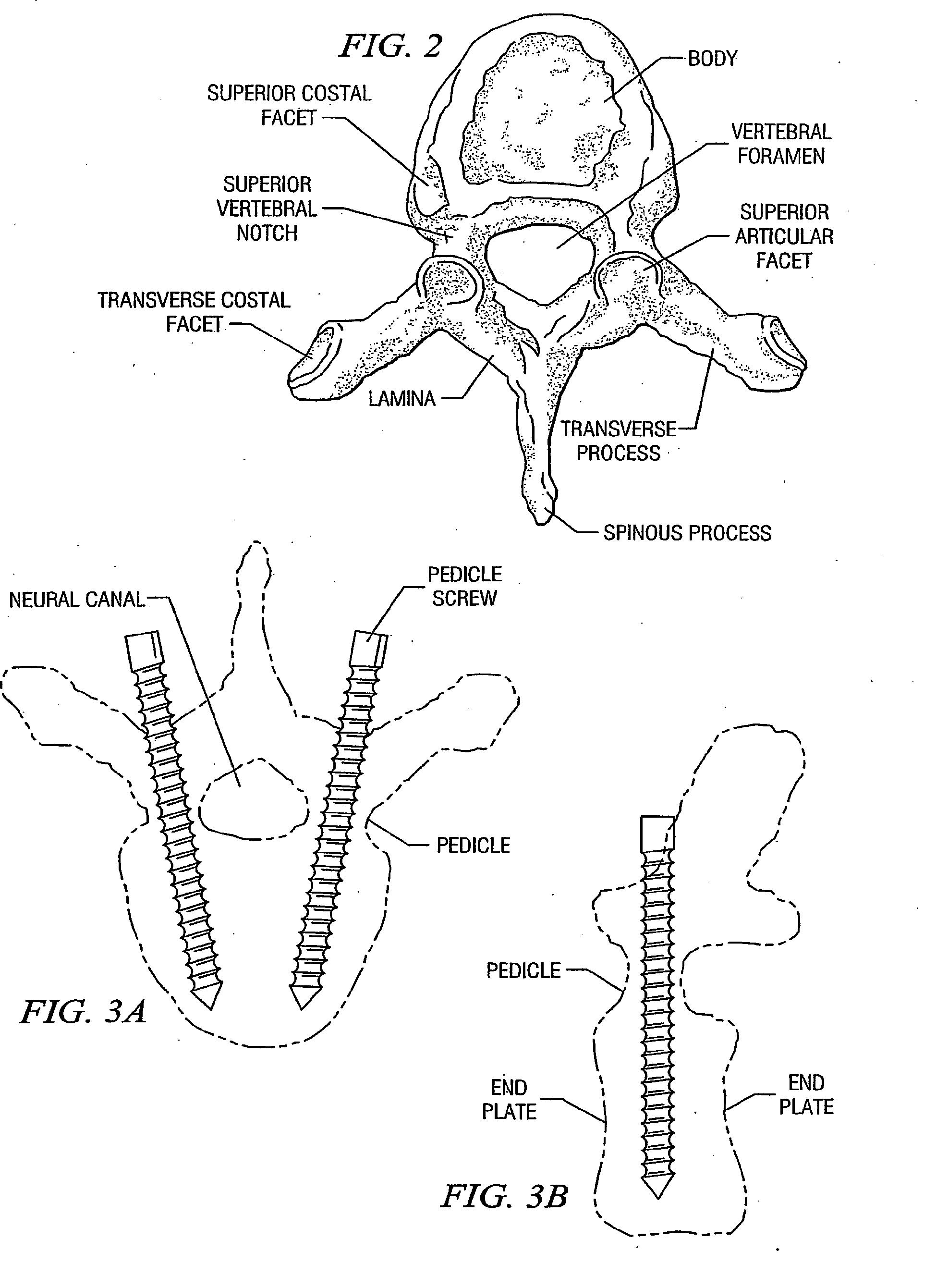 patent ep1631931b1 verfahren und systeme zur. Black Bedroom Furniture Sets. Home Design Ideas