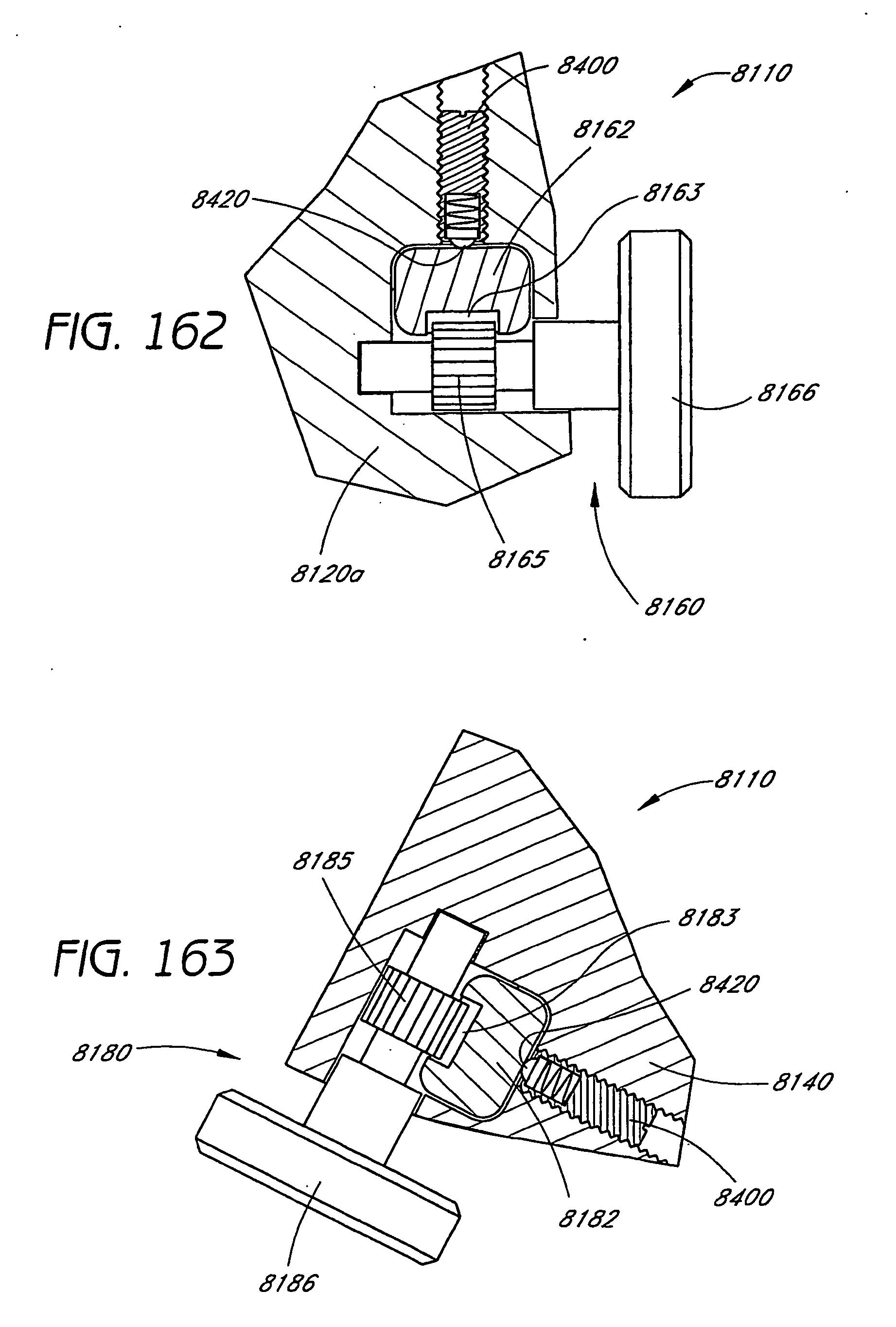 patent ep1694223b1 zugangsvorrichtung mit verstellbarer h he zur behandlung der wirbels ule. Black Bedroom Furniture Sets. Home Design Ideas