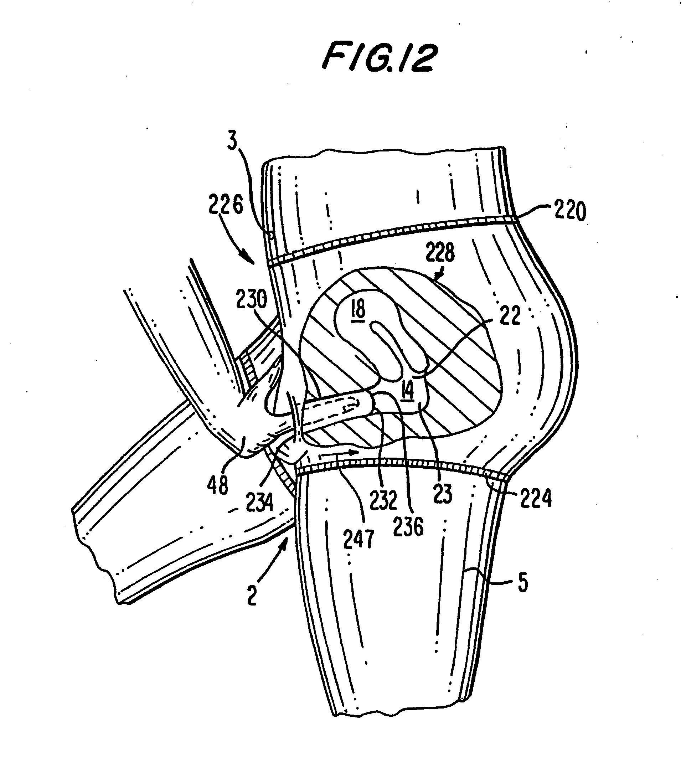 patent ep1804748b1