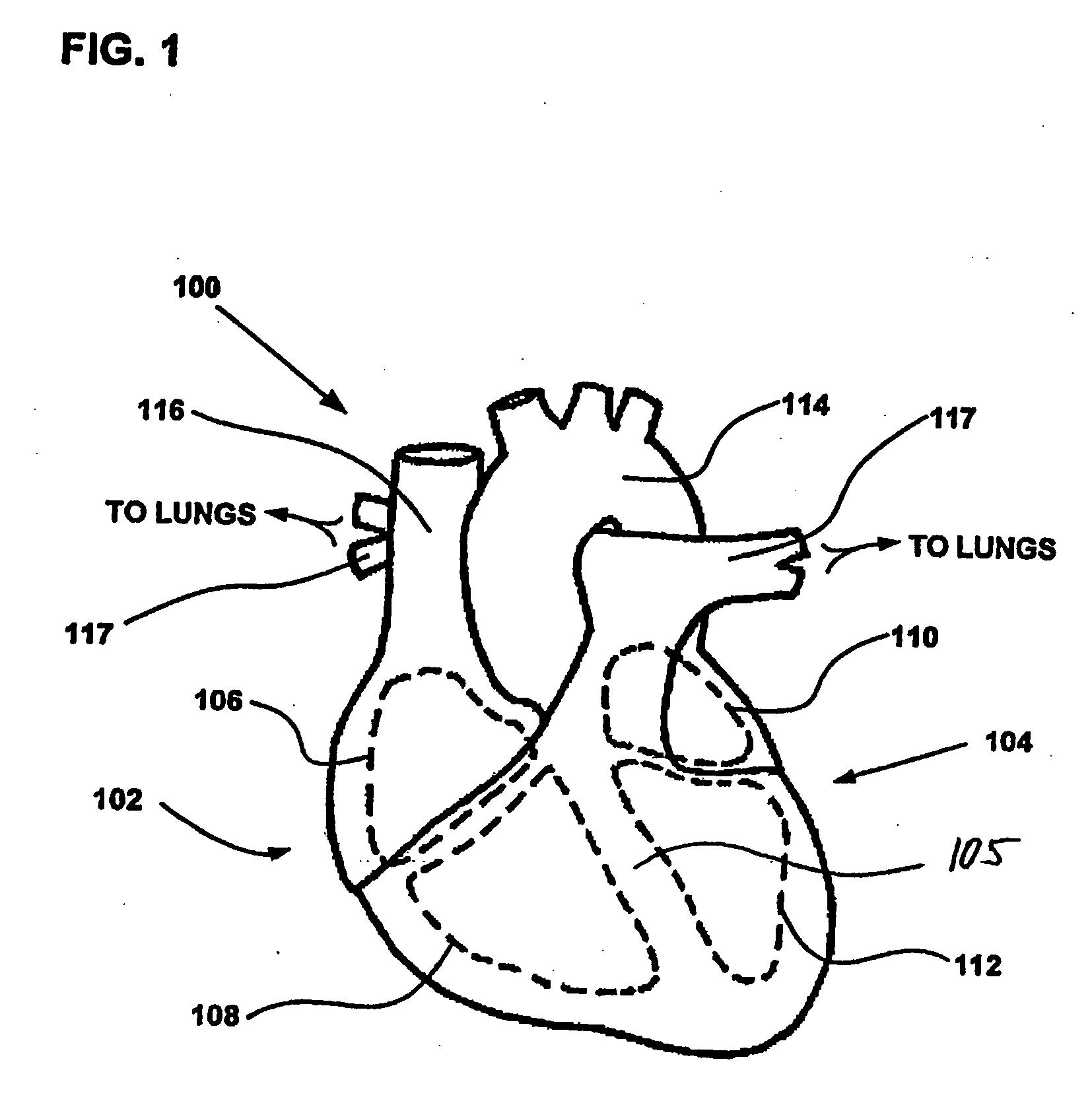 patent ep1904167b1 ger t zur optimierung der atrioventrikul ren verz gerung google patentsuche. Black Bedroom Furniture Sets. Home Design Ideas