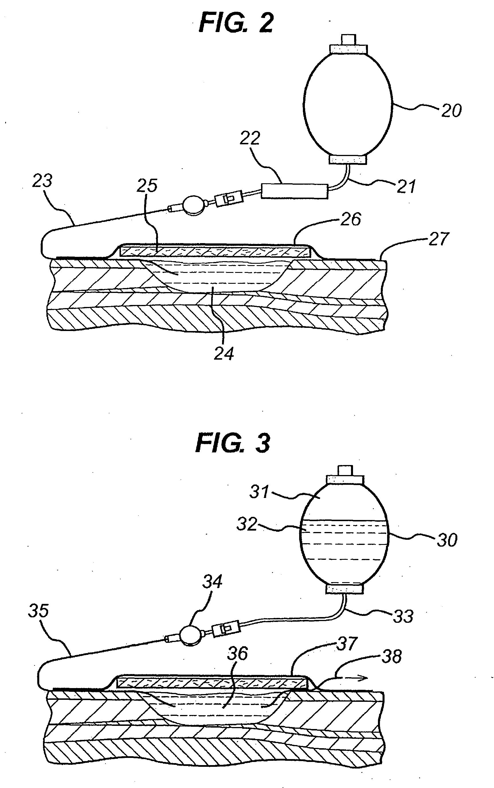 patent ep2149358a1 verwendung von sauerstoff zur wundbehandlung google patentsuche. Black Bedroom Furniture Sets. Home Design Ideas