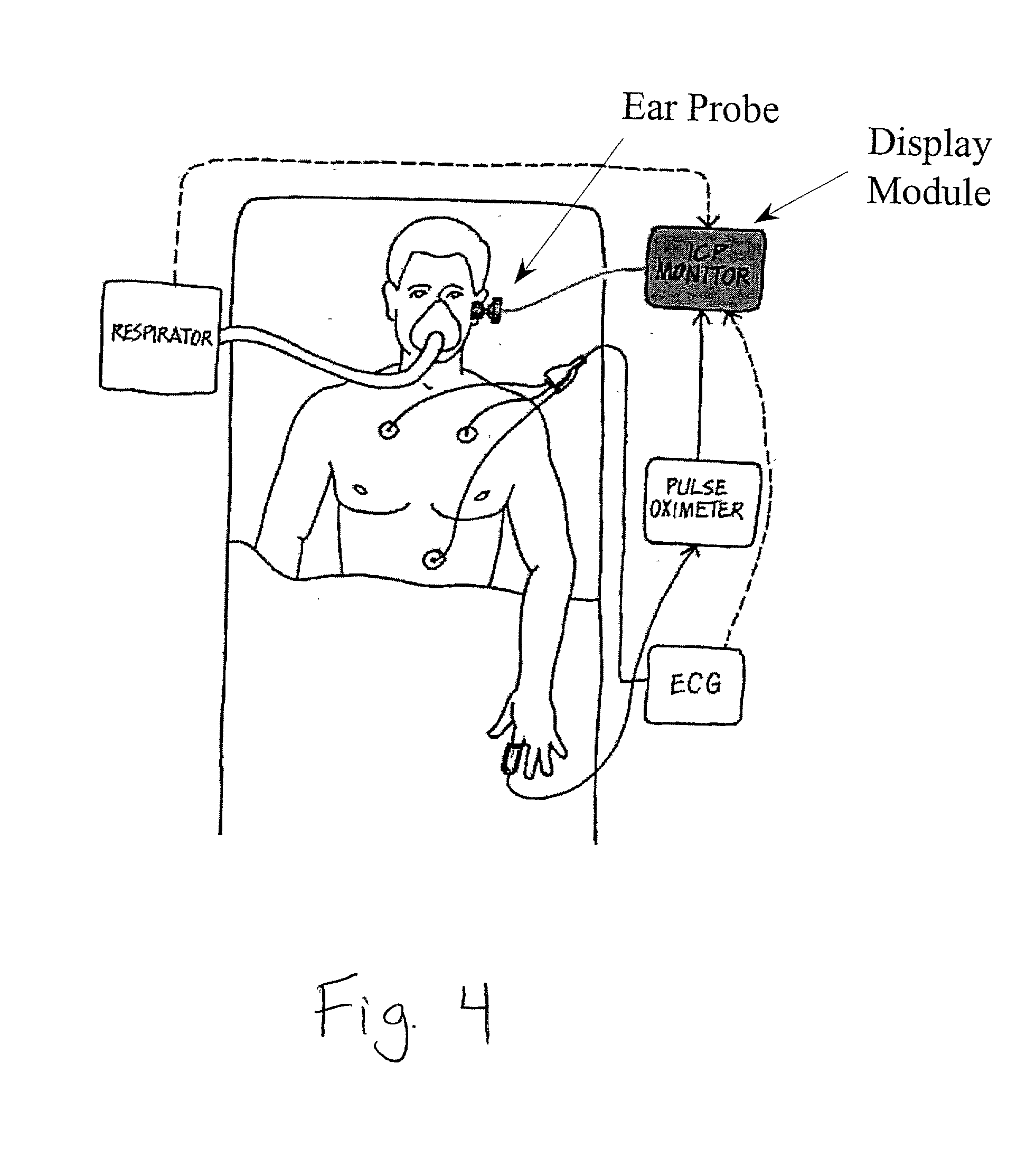 patent us20010027335