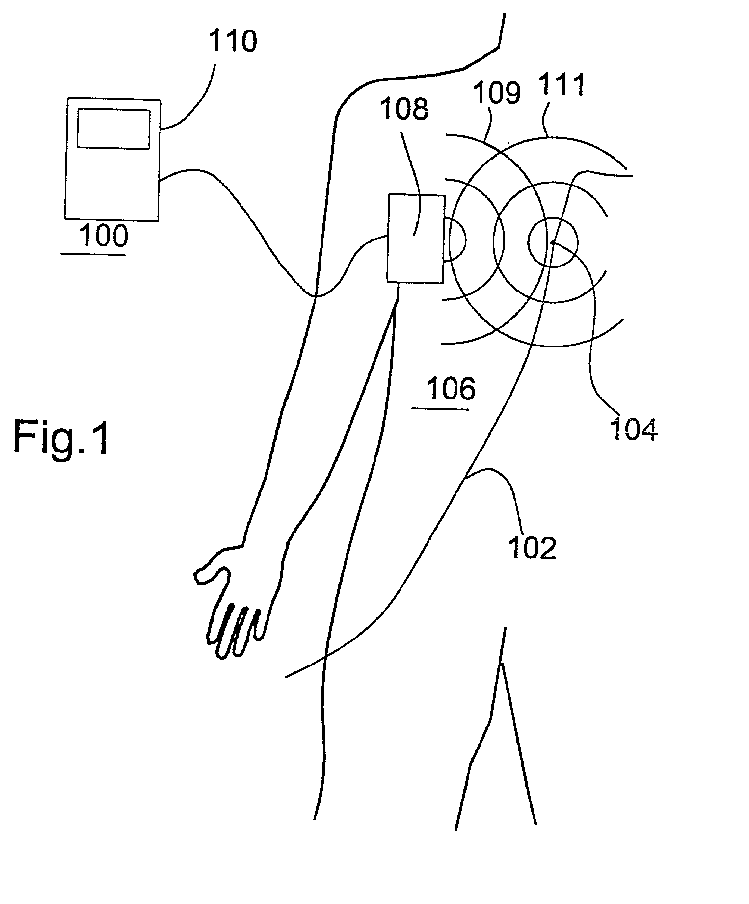 patent us20020013527