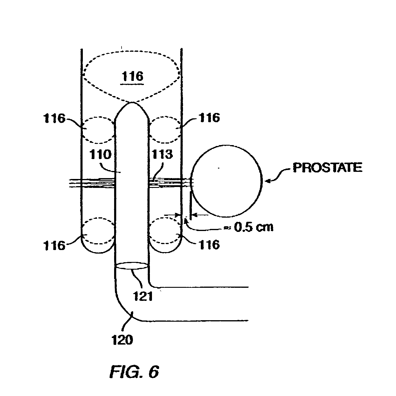 patent us20020183735