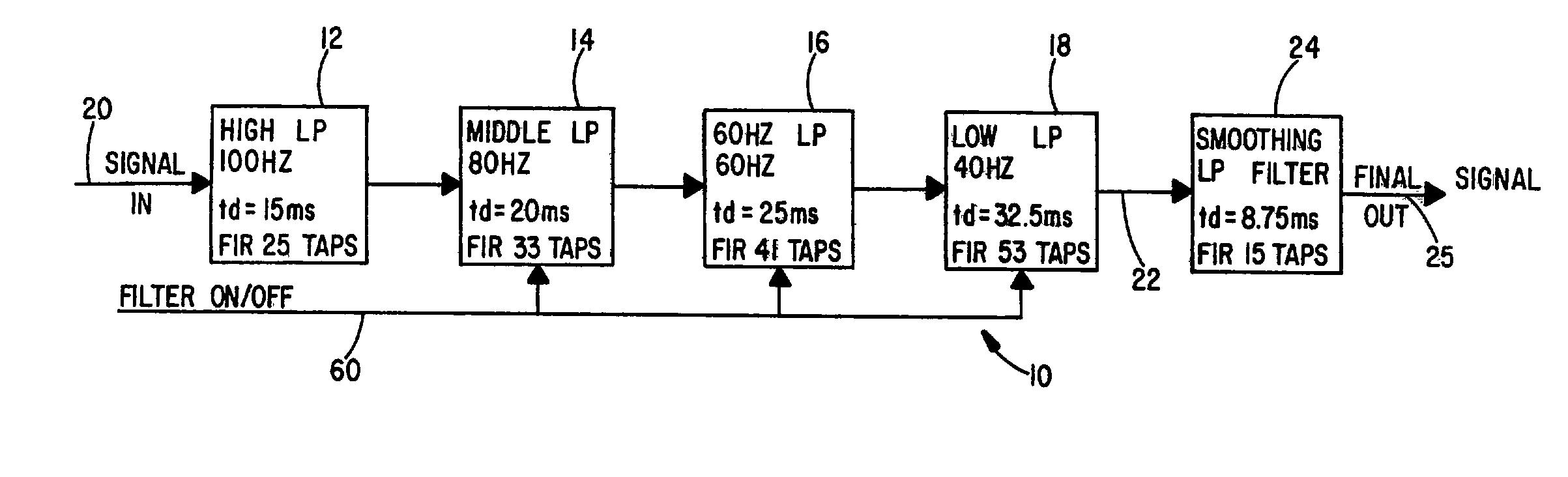 براءة الاختراع US20030083583 - Low distortion ECG filter - براءات