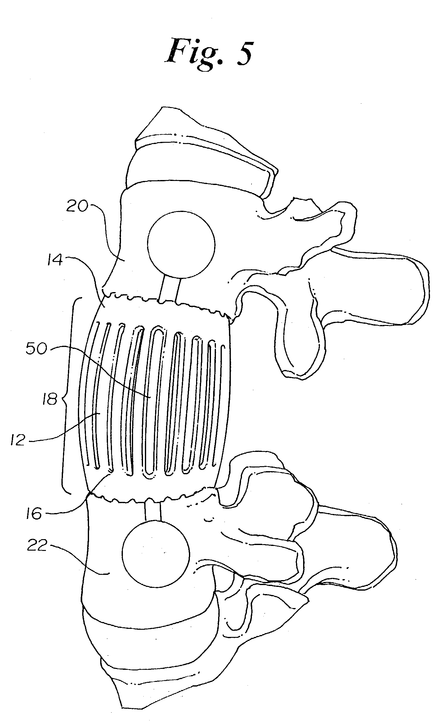US20030083749 on Connecting Rod Length