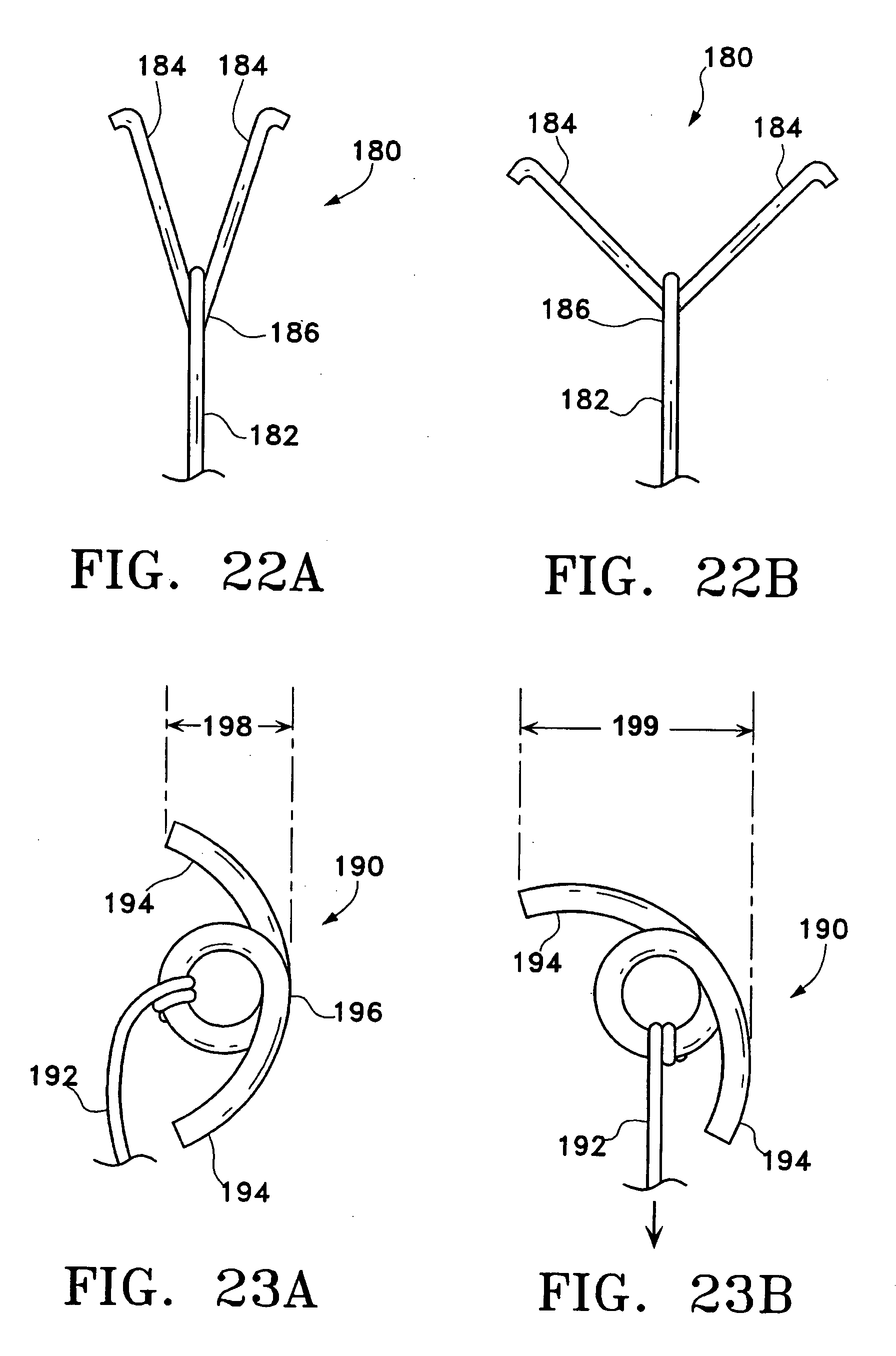 Line Drawing Method : Patent us  method for lung volume reduction