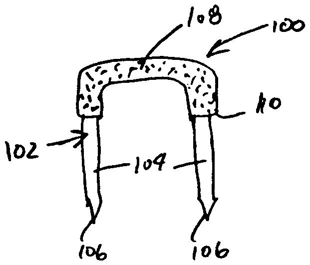 Patent Us20040126201