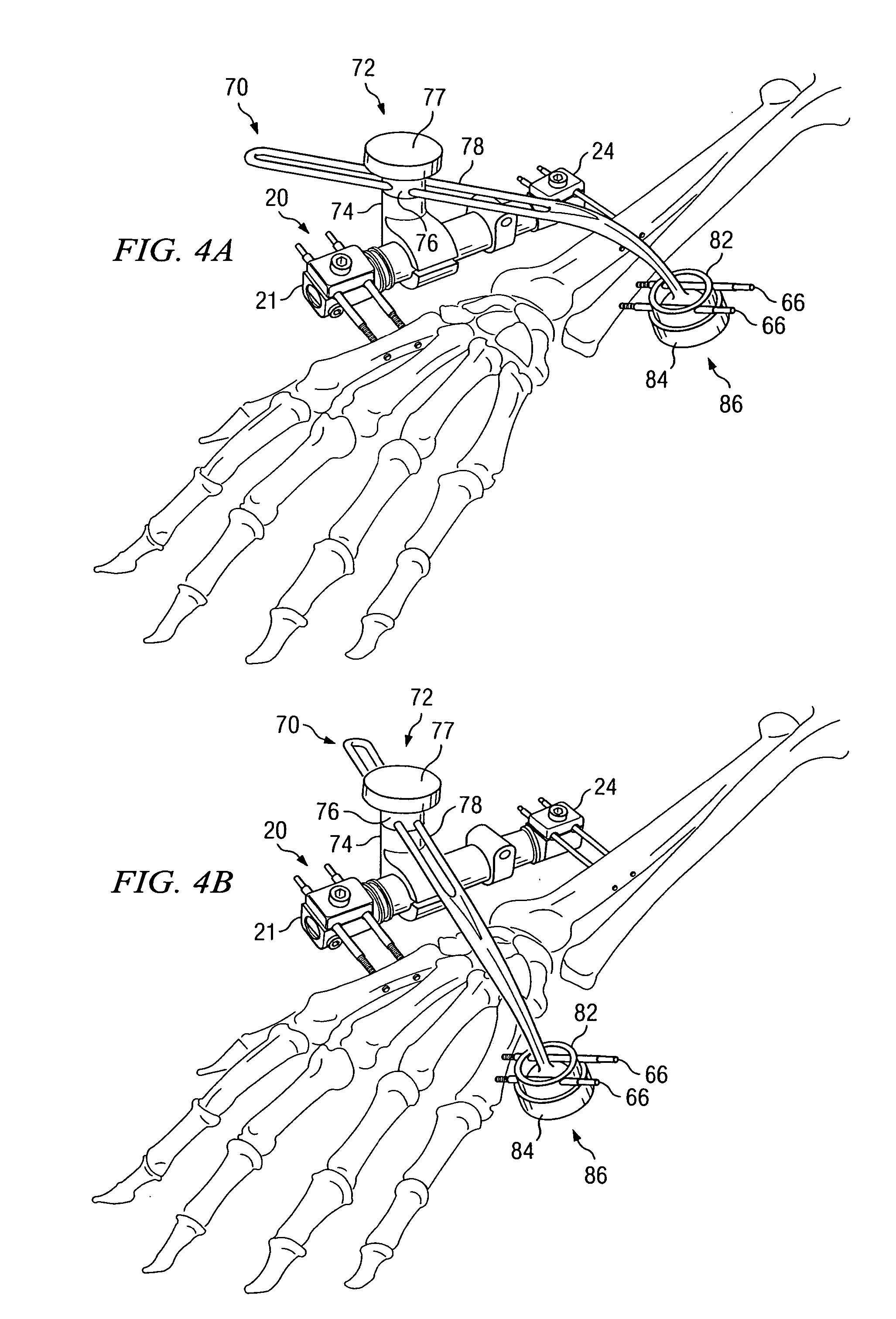patent us20040133200 apparatus and method for maintaining bones in External Fixator Wrist patent drawing