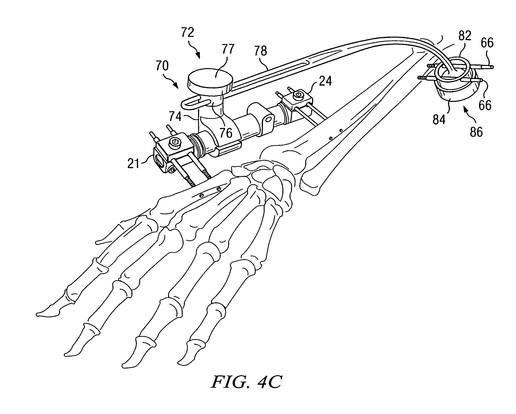 patent us20040133200 apparatus and method for maintaining bones in External Fixator Mouth patent drawing